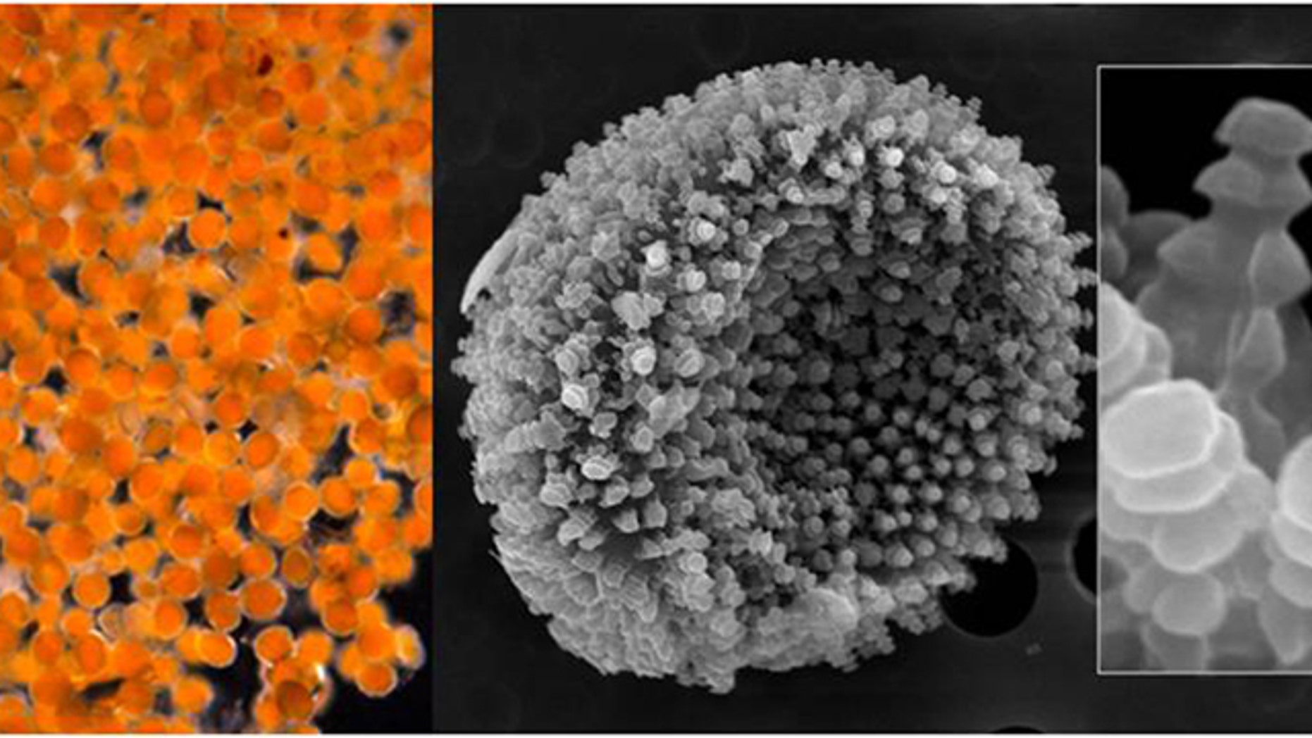 A magnified views of an orange goo that appeared Aug. 3, 2011 along the shore of the village of Kivalina, Alaska. The goo turned out to be fungal spores, not millions of microscopic eggs as indicated by preliminary analysis, scientists said Thursday, Aug. 18, 2011.