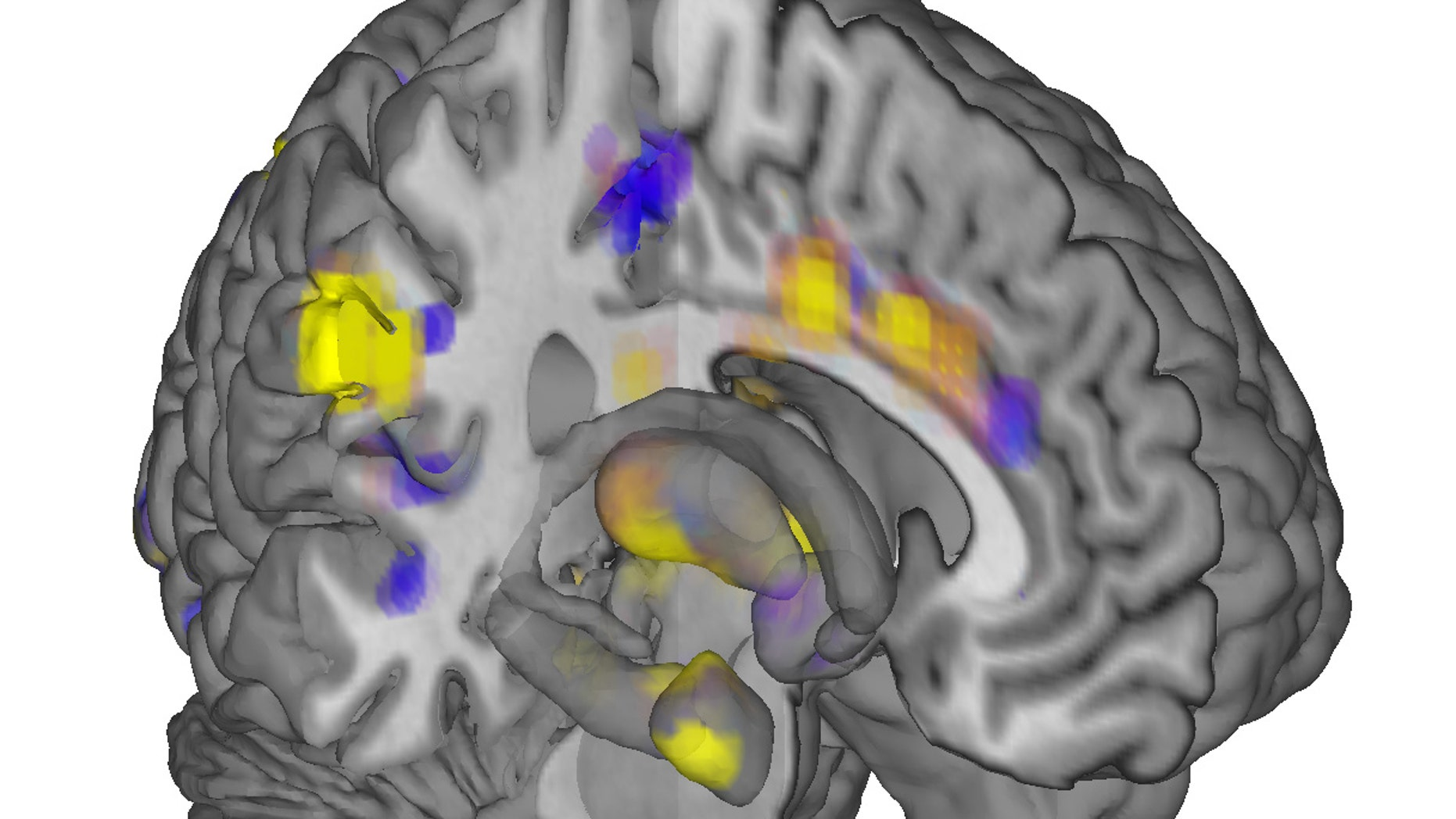 Activity in yellow-colored areas is predictive of higher levels of pain, and activity in blue-colored areas is predictive of lower levels of pain.  (AP Photo/University of Colorado, Boulder, Tor Wager)