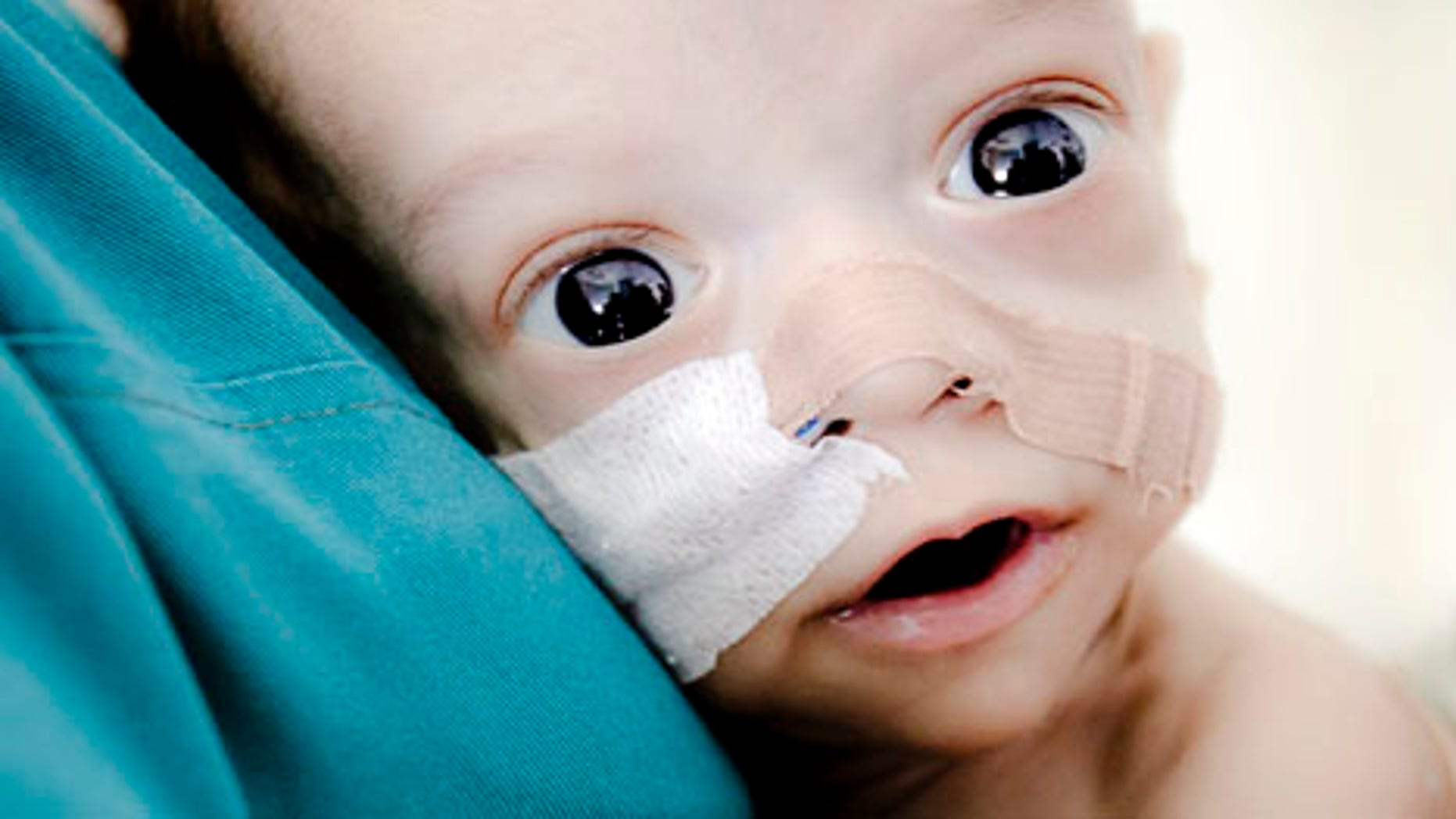 Baby Andrei, a Romanian baby born with virtually no intestines who confounded doctors by clinging to life and captured international attention for his fighting spirit, has died. (AP Photo/Vadim Ghirda, file)