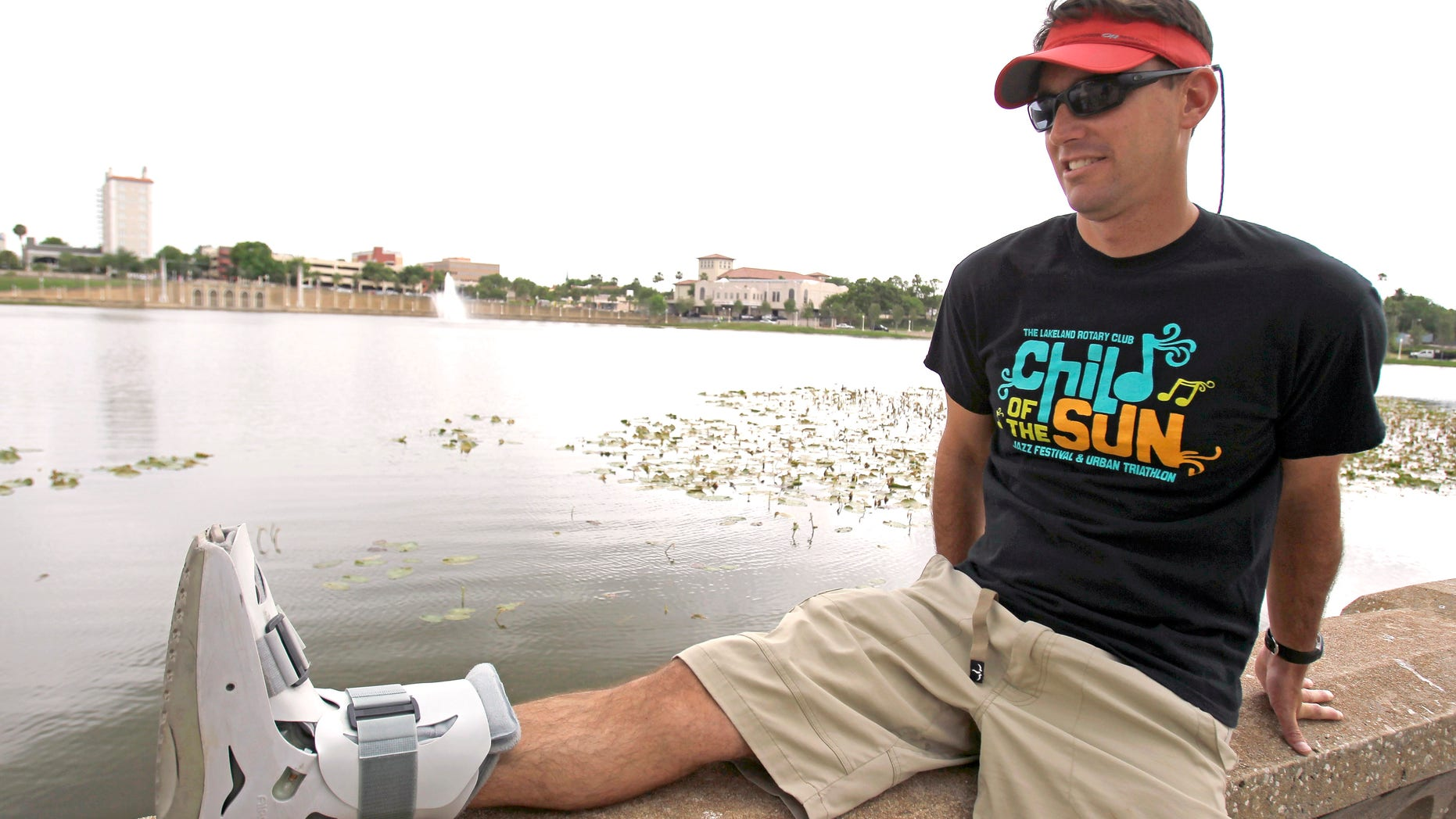 Greg Farris rests his foot that he injured while running in barefoot running shoes.(AP Photo/John Raoux)