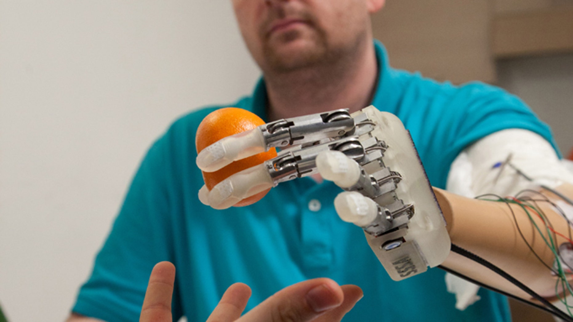 This March 2013 handout photo provided by Science Translational Medicine shows amputee Dennis Aabo Sørensen holding an orange while wearing sensory feedback enabled prosthesis in Rome. To feel what you touch _ that's the holy grail for artificial limbs. In a step toward that goal, European researchers created a robotic hand that let an amputee feel differences between a bottle, a baseball and a mandarin orange. (AP Photo/Patrizia Tocci, Science Translational Medicine)