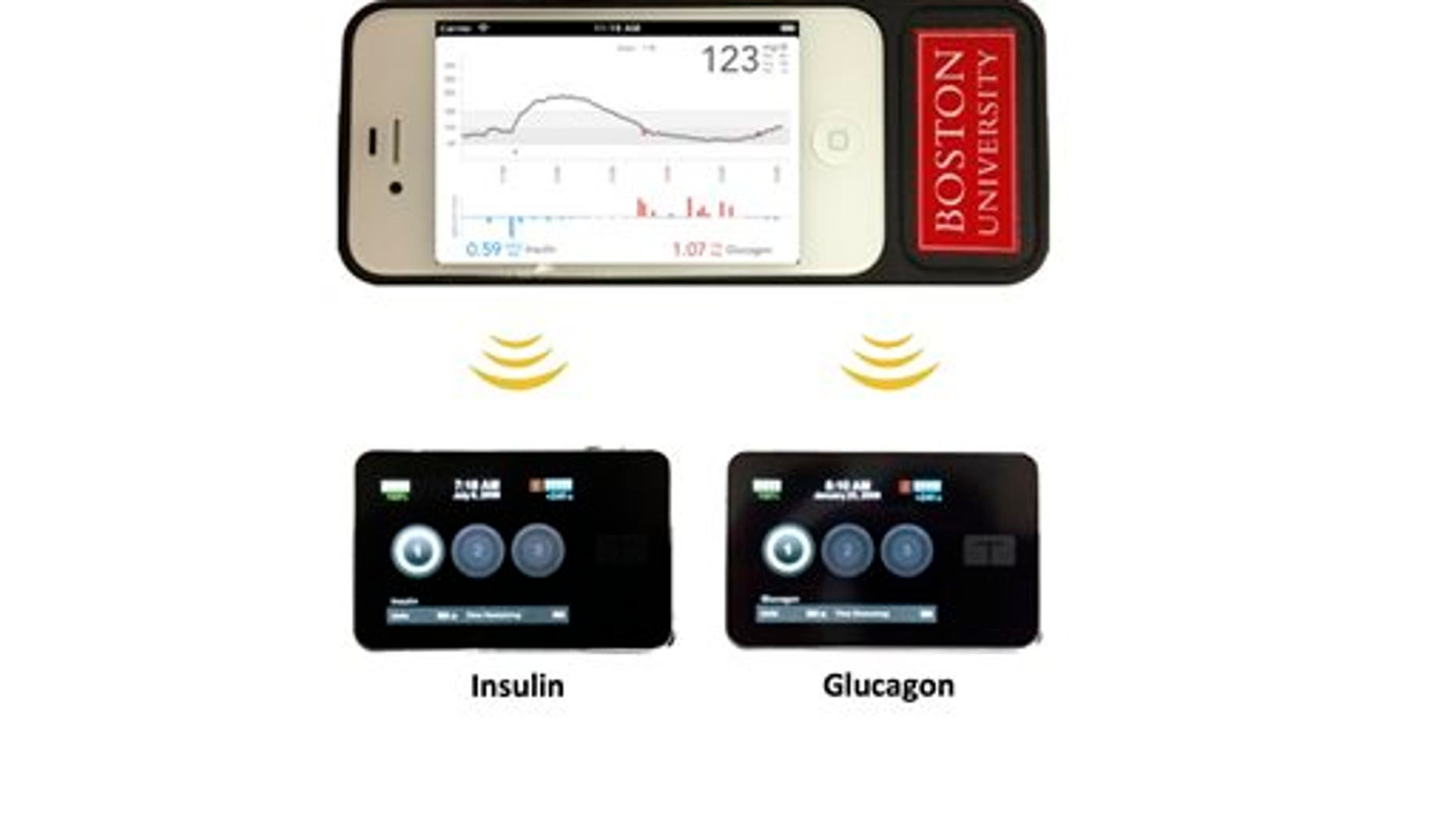 This undated product image provided Boston University Department of Biomedical Engineering shows the bionic pancreas developed by a Boston University/Massachusetts General Hospital research team. The bionic pancreas consists of a smartphone, top, hardwired to a continuous glucose monitor and two pumps, bottom, that pumps deliver doses of insulin or glucagon every five minutes. (AP Photo/ Boston University Department of Biomedical Engineering)