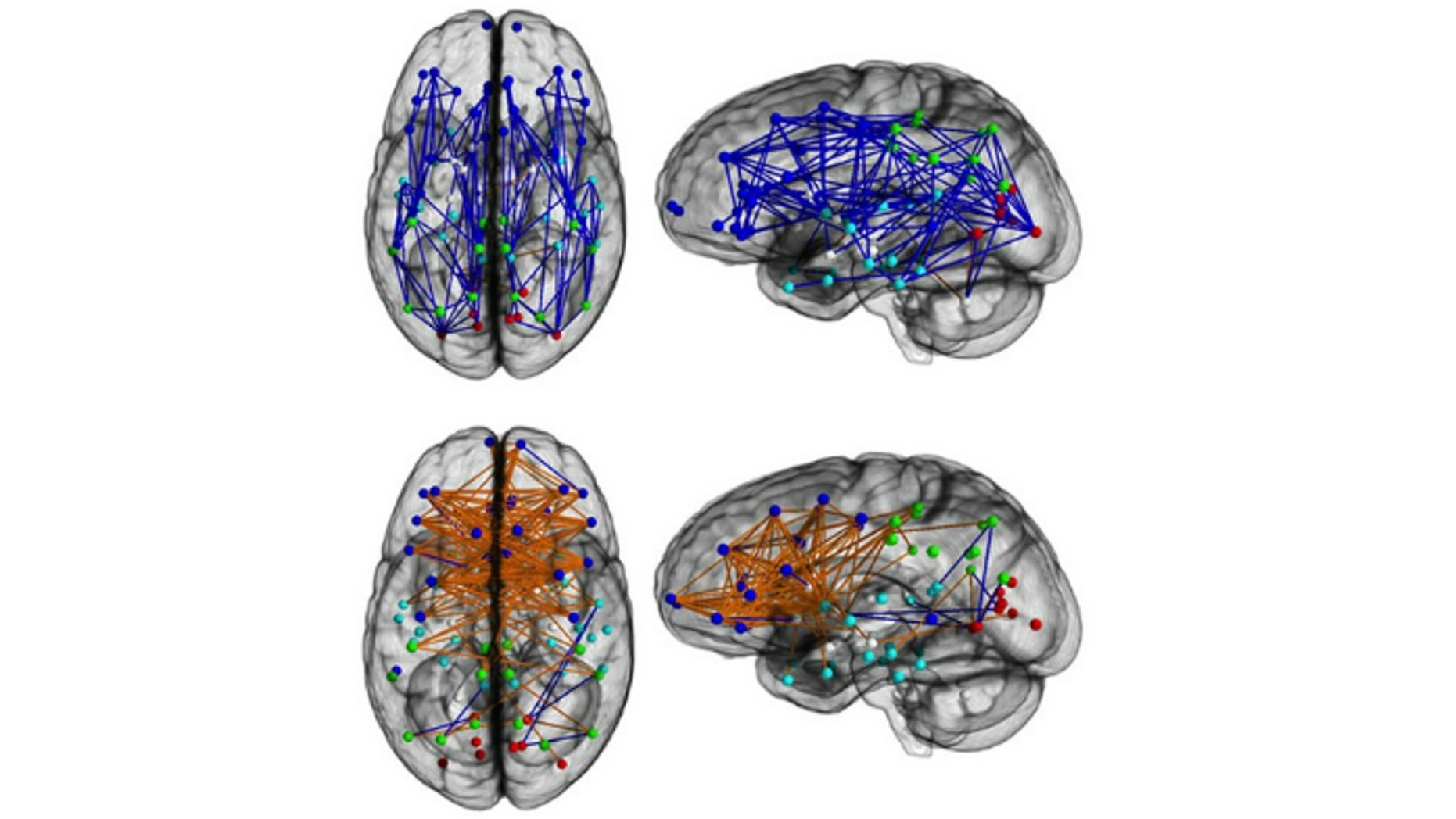 Brain networks showing significantly increased intra-hemispheric connectivity in males (Upper) and inter-hemispheric connectivity in females (Lower). Intra-hemispheric connections are shown in blue, and inter- hemispheric connections are shown in orange.