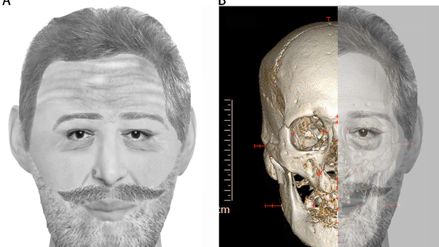 Dec. 15: In this combination digital image made available by Jean-Noel Vignal and Isabelle Huynh-Charlier, a reconstruction of the face France's King Henri IV is seen, left, and his skull with the reconstruction overlaid is seen at right.