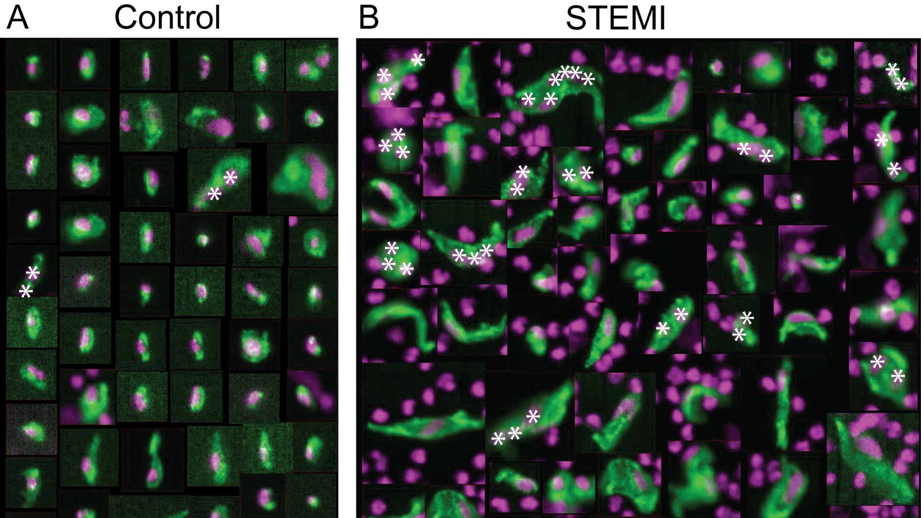 On the left are normal, healthy cells that line the coronary artery -- also known as circulating endothelial cells (CEC). On the right are CECs from heart attack patients which appear abnormally large, misshapen and with multiple nuclei.