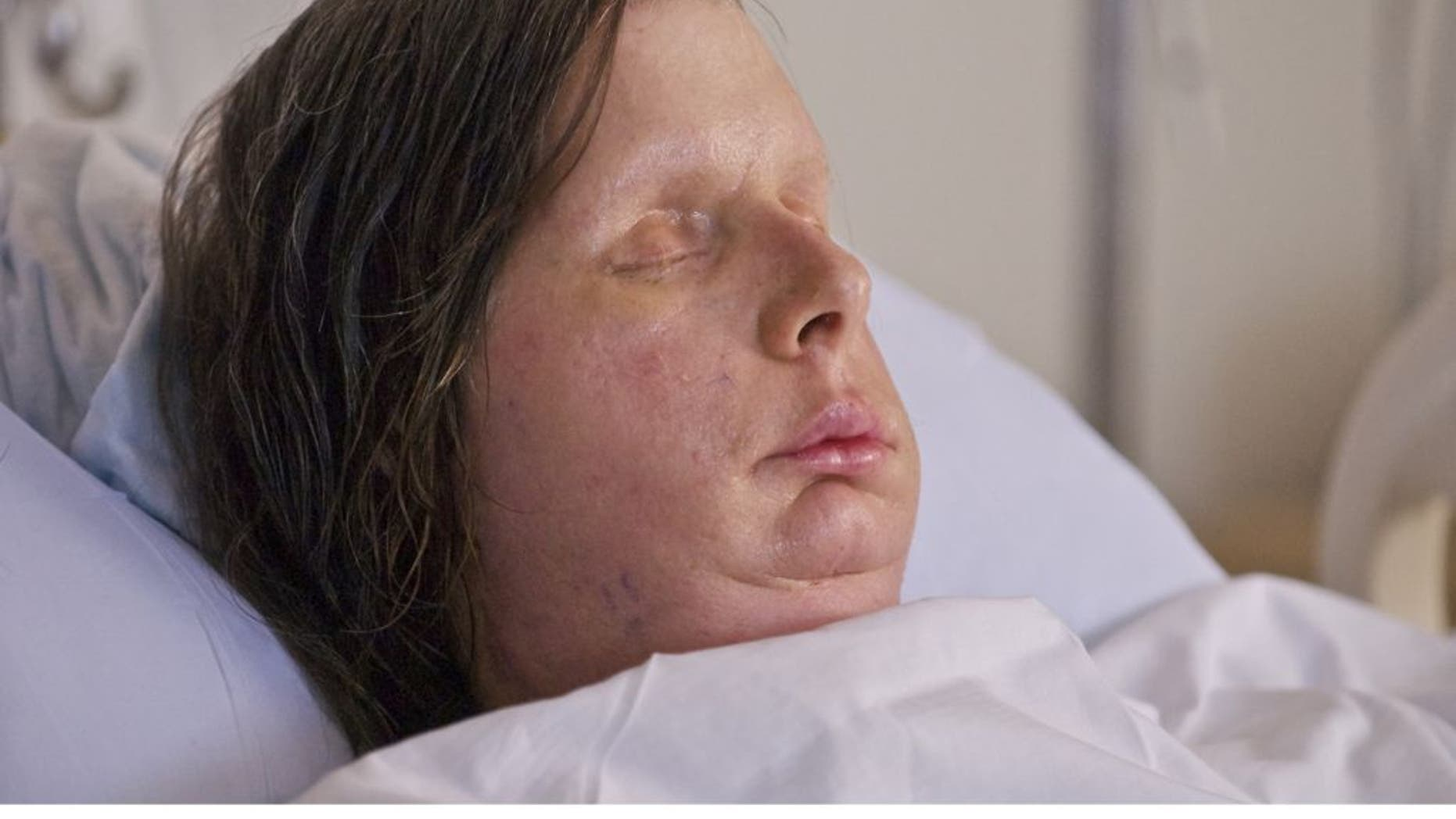 Charla Nash, after a full face transplant at Brigham and Women's Hospital.