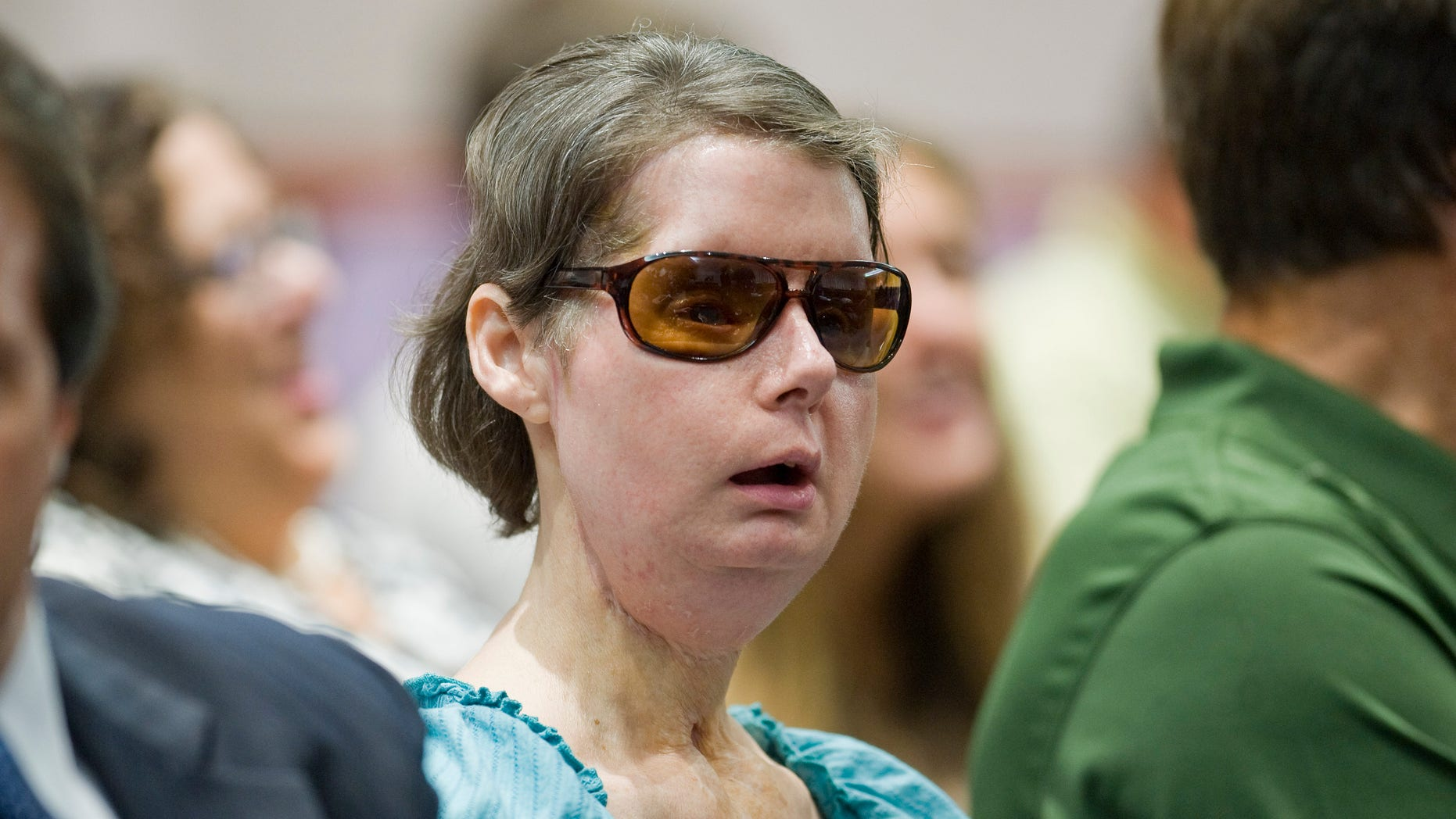 Aug. 10, 2012: File photo, Charla Nash sits before a hearing at the Legislative Office Building in Hartford, Conn. Lawyers for Nash, who was mauled by a chimpanzee in Connecticut, have agreed to settle a lawsuit against the estate of the primate's now-dead owner.