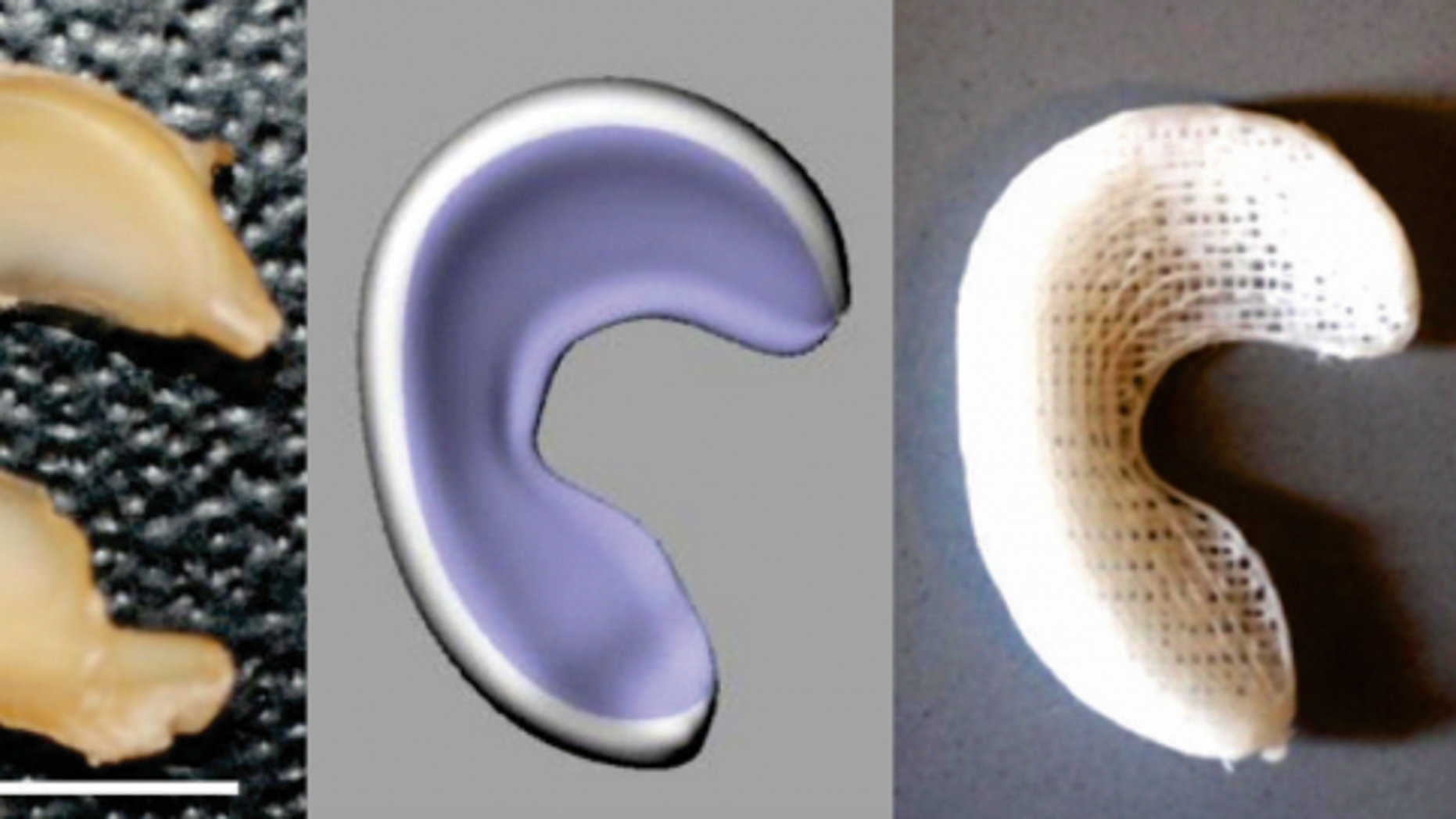 Left to right: Sheep meniscus; 3-D model of meniscus obtained from laser scanning; 3-D printed anatomically correct meniscus scaffold.