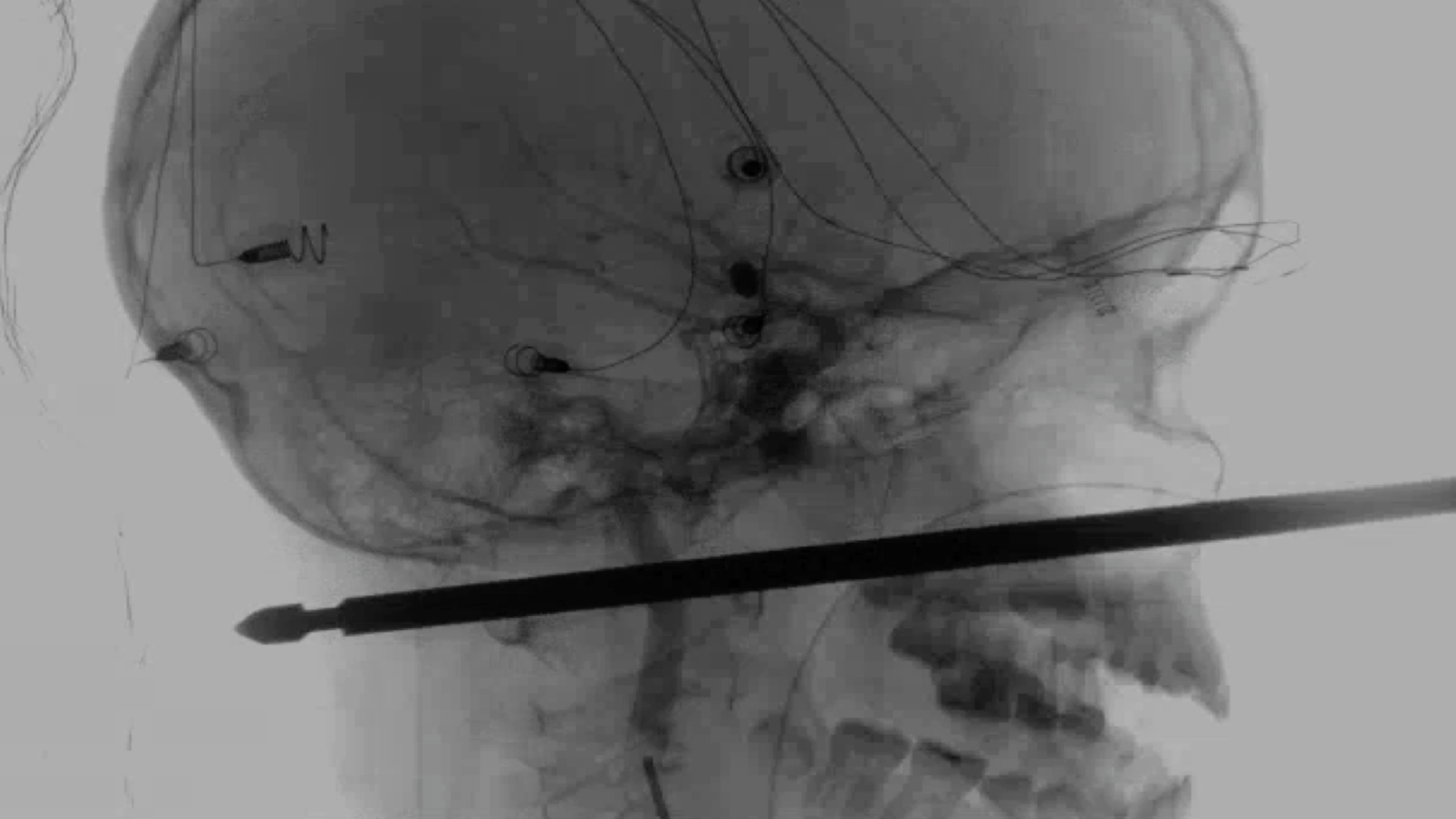 This X-ray provided by the Medical News Network shows a meat skewer impaled in the skull of Xavier Cunningham after an accident at his home Saturday, Sept. 8, 2018, in Harrisonville, Mo. Cunningham's experience began when yellow jackets attacked him in a tree house and he tumbled from the tree, landing on the skewer. The skewer had completely missed the boy's eye, brain, spinal cord and major blood vessels and doctors think he could recover completely. (Medical News Network via AP)