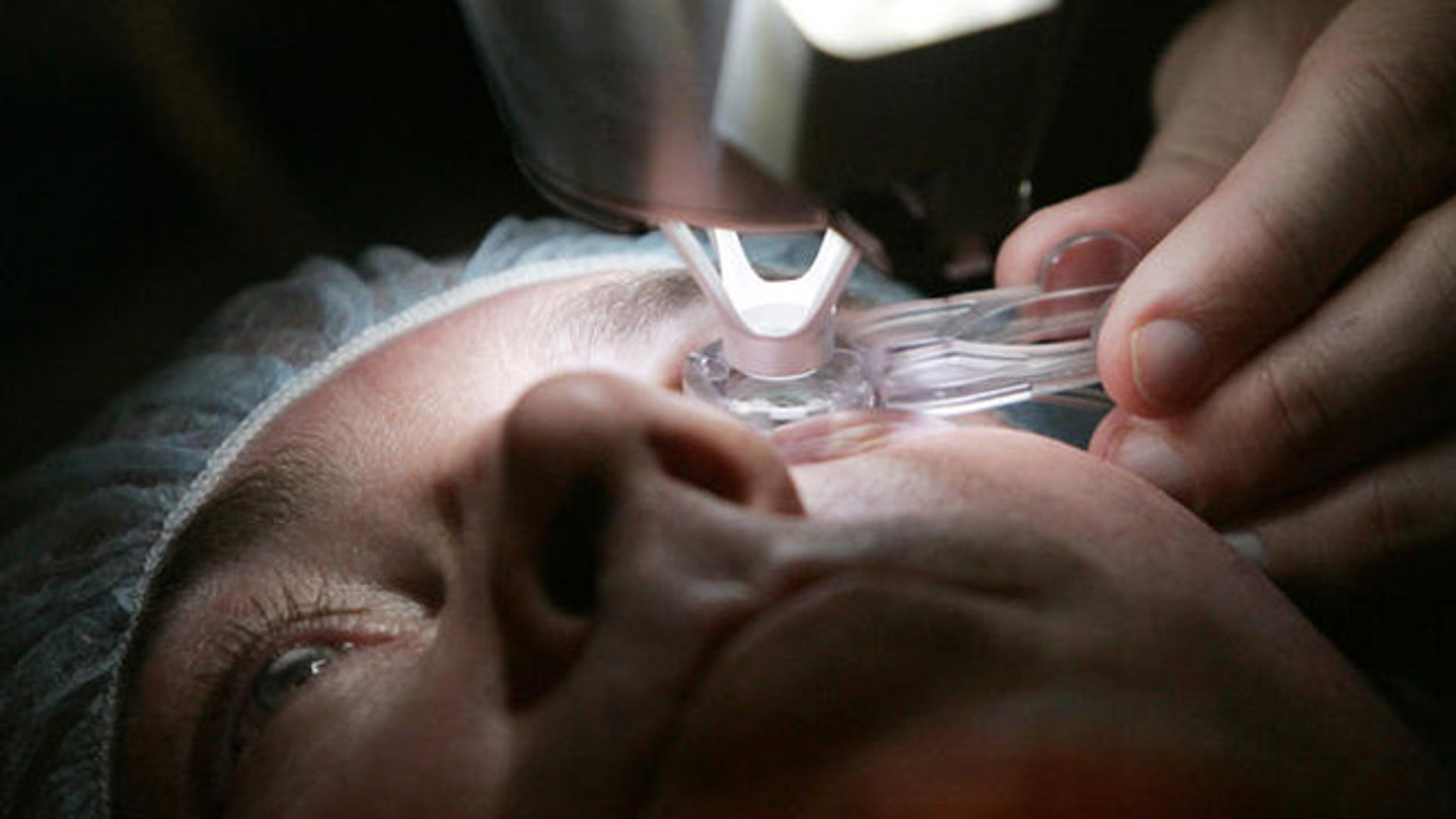 ** ADVANCE FOR SUNDAY, DEC. 11 **Dr. Colman Kraff docks the femtosecond laser, flattening the cornea, of patient Steve Parker as the initial step in creating the Lasik flap during Parker's eye surgery at Kraff's offices in Chicago Nov. 1, 2005. (AP Photo/Charles Rex Arbogast)