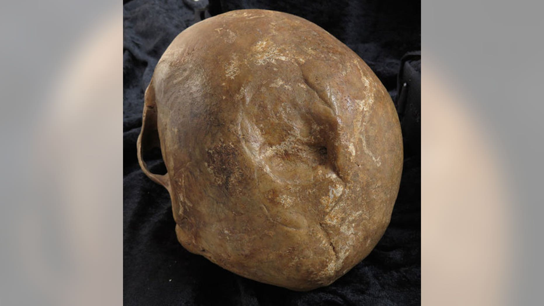 The smooth edges of this skull fracture suggest that the injury healed after the skull's owner, a man buried in Odense, Denmark, was hurt.