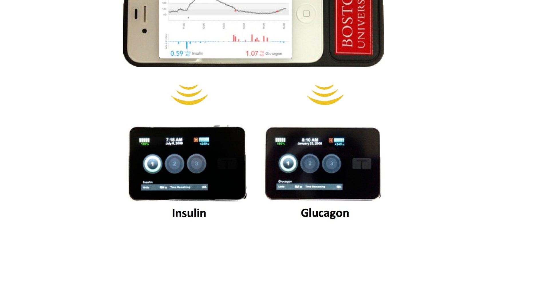 The bionic pancreas consists of a smartphone, top, hardwired to a continuous glucose monitor and two pumps, bottom, that pumps deliver doses of insulin or glucagon every five minutes. (AP Photo/ Boston University Department of Biomedical Engineering)
