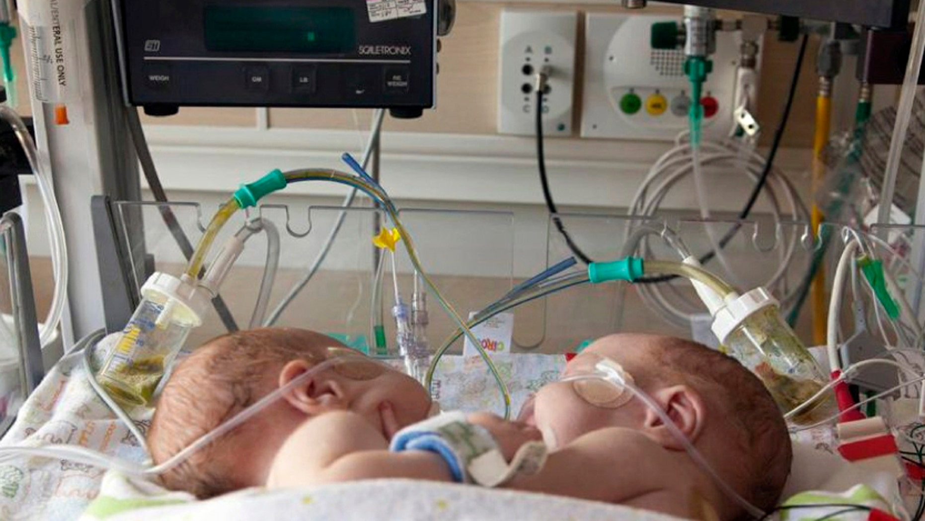 Conjoined Twins Separated At Dallas Hospital In Stable Condition