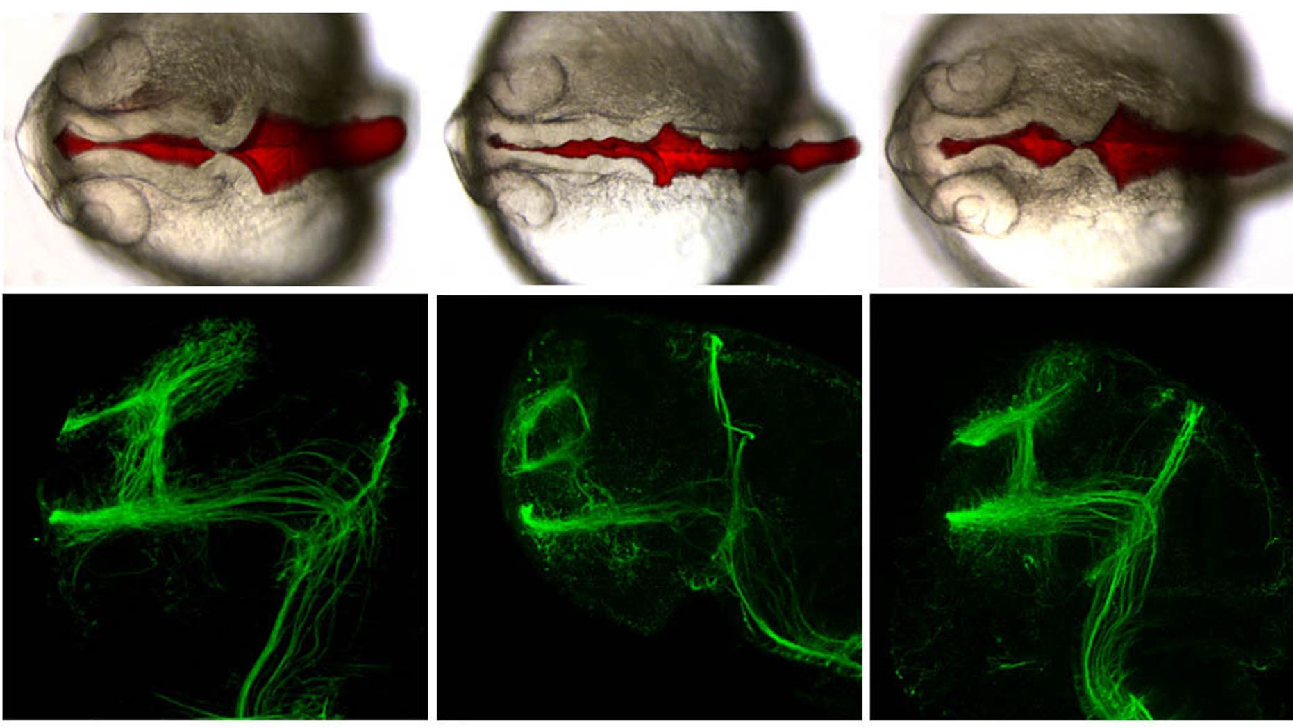 The control (left) shows no brain abnormalities in fish compared to when the autism-associated genes are repressed (center). The last picture shows a re-healed brain after human mRNA is added.
