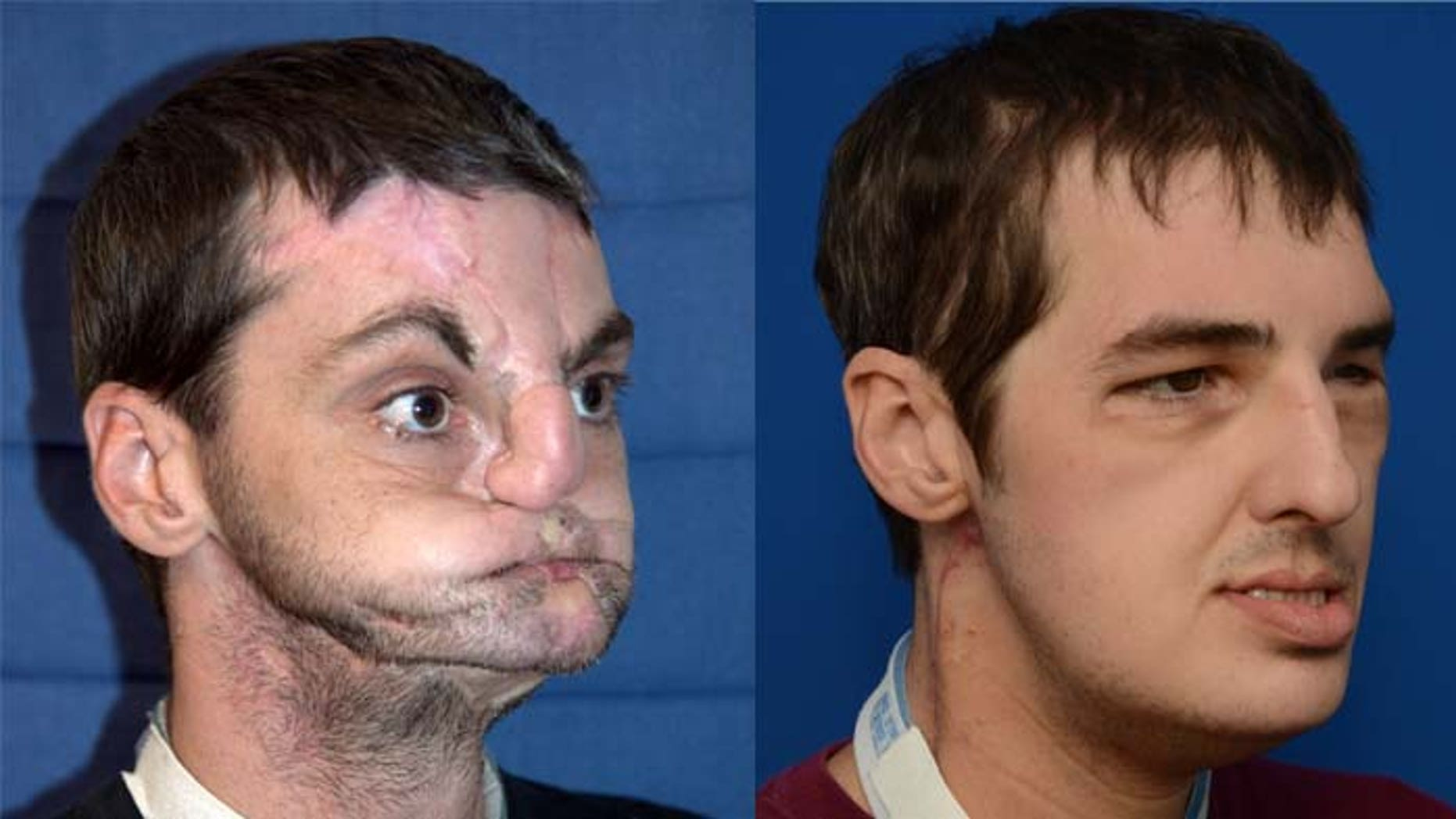 Richard Norris after a gun accident and seven months after receiving a full face transplant.