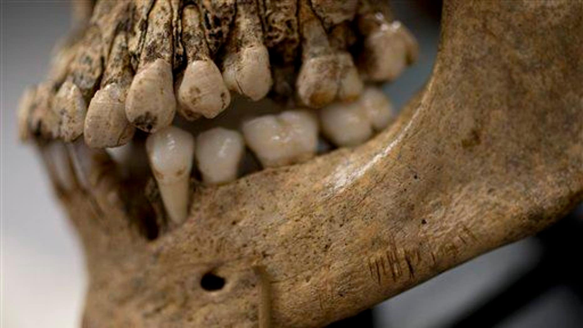"""Numerous small knife cuts and punctures in the mandible of  """"Jane of Jamestown"""" are seen during a news conference at the Smithsonian's National Museum of Natural History in Washington, May 1, 2013."""