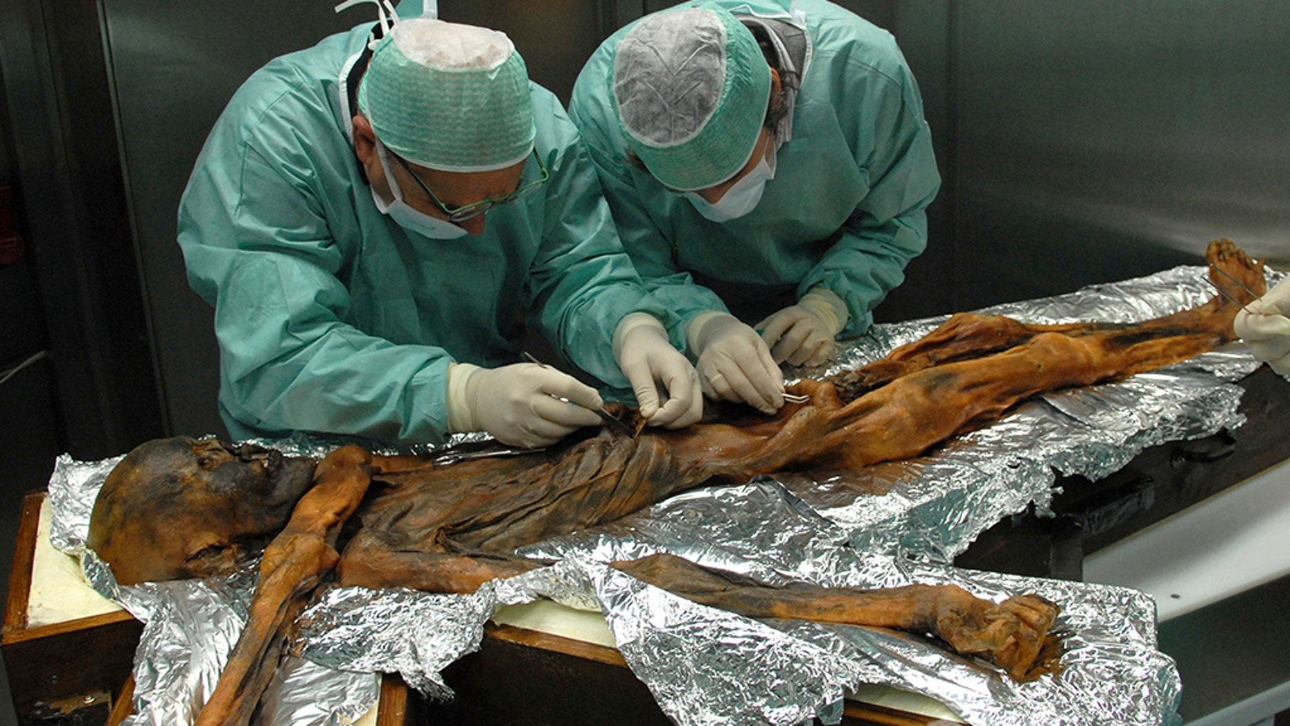 In this November 2010 photo provided by the South Tyrol Museum of Archaeology, researchers examine the body of a frozen hunter known as Oetzi the Iceman to sample his stomach contents in Bolzano, Italy.