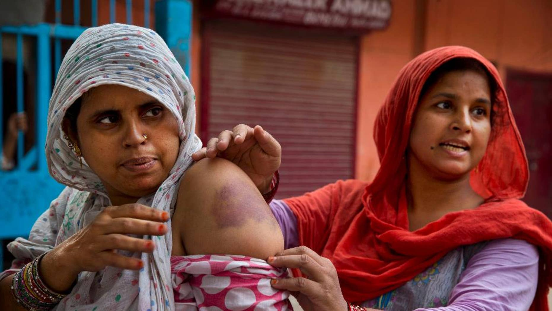 Nov. 7, 2014: Bhuri Begum, right, pulls down the sleeve of Farhad's shirt to display bruises caused allegedly by police beating after security was enhanced in the area following rioting between Hindus and Muslims in New Delhi