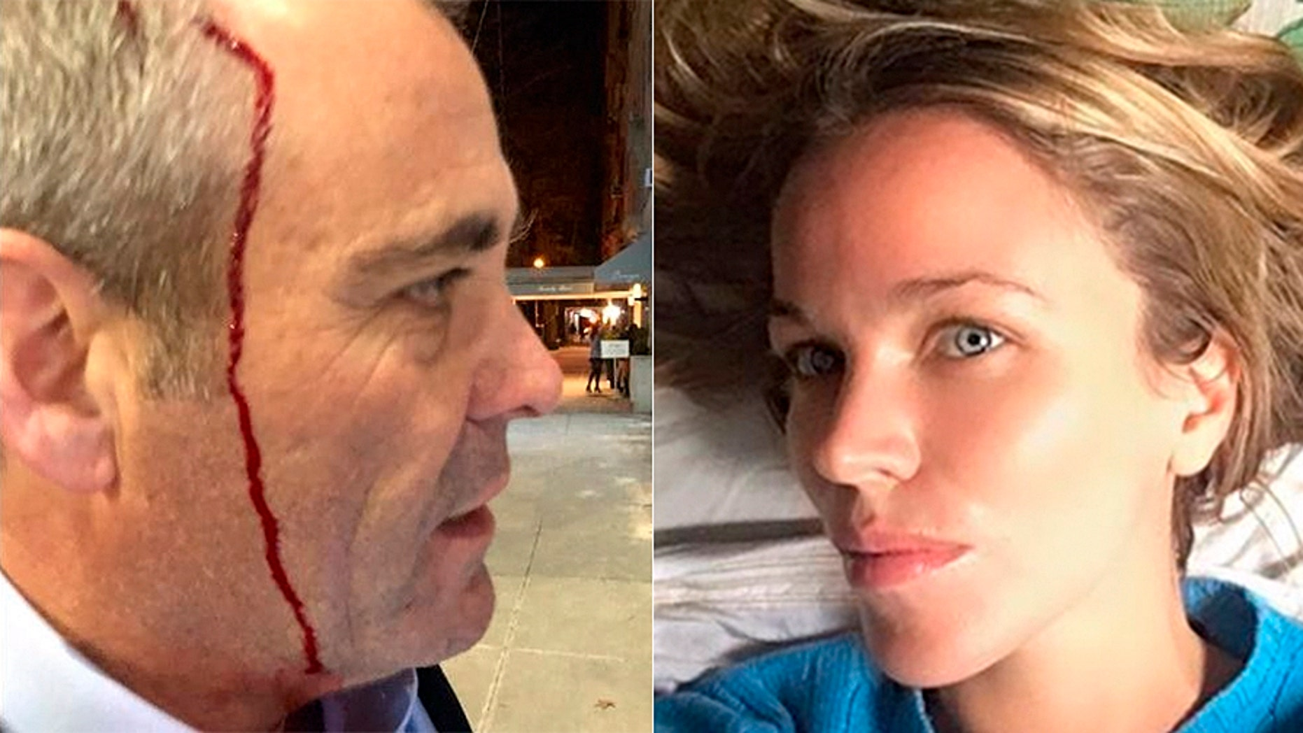 """Attorney Matthew Haberkorn alleged that socalite Jacqueline Kent Cooke called his mother a """"Jew"""" and attacked him with a glass purse. Prosecutors said Wednesday they were unable to prove the allegations."""