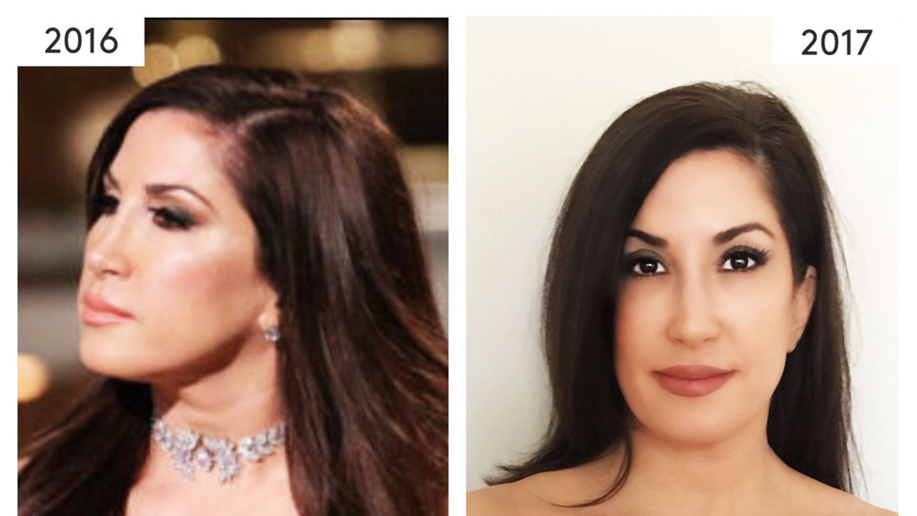 """Real Housewives of New Jersey"" star Jacqueline Laurita's results after getting Ideal Implant."