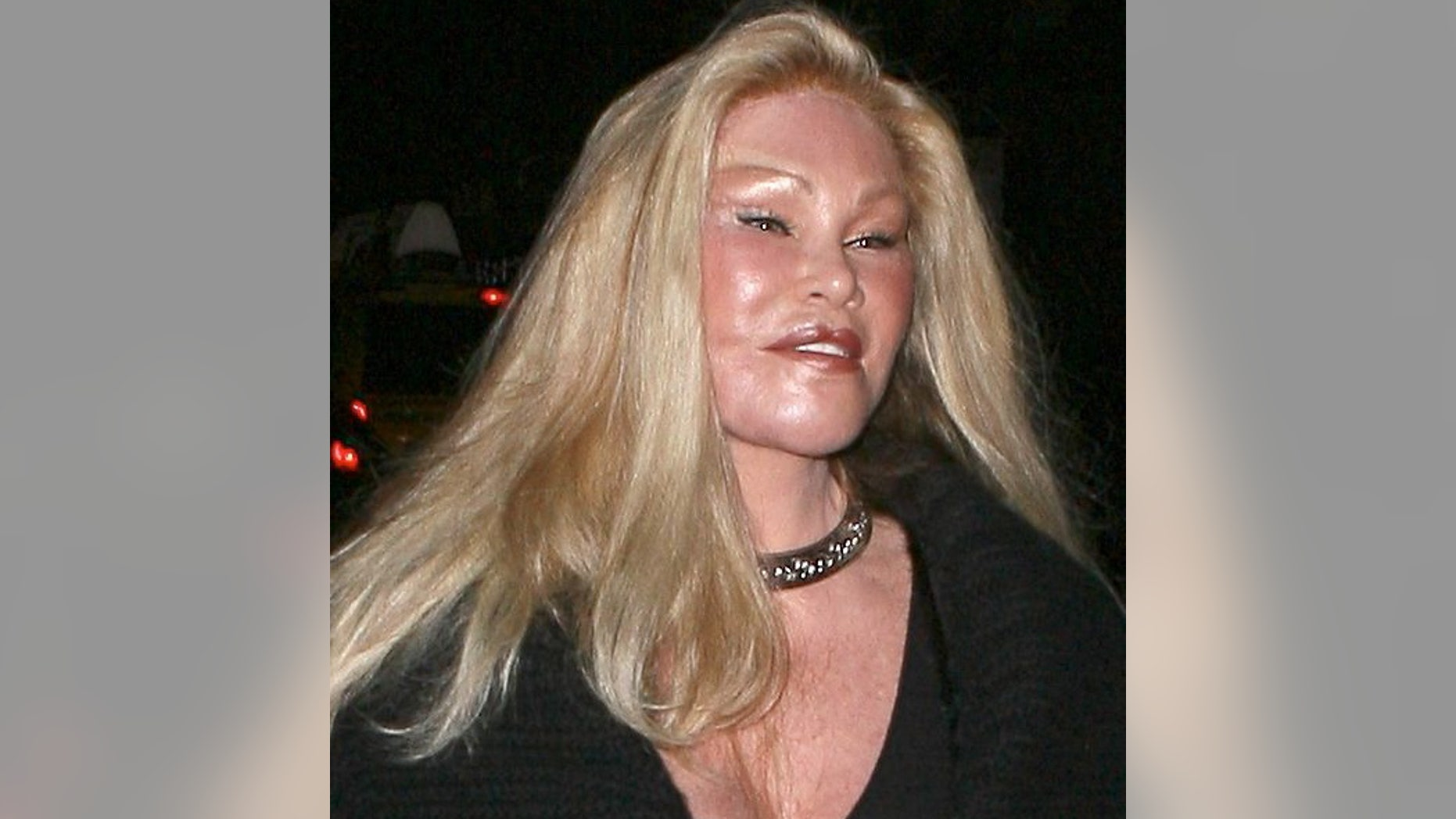 """This New York socialite is known for leading an extravagant lifestyle-- including spending huge sums of money on countless plastic surgeries. Sadly, Jocelyn probably wishes she could buy her old face back.<a target=""""_blank"""" href=""""http://www.x17online.com/gallery/view_gallery.php?gallery=Wildestein091409_X17"""">See more photos of Jocelyn at X17online.com.</a>"""