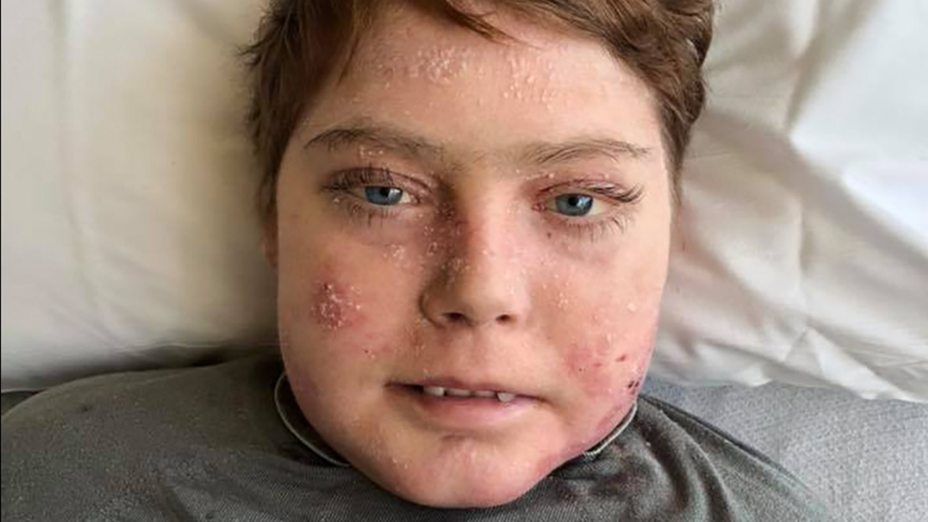Teen dubbed 'butterfly boy' dies of rare skin disease
