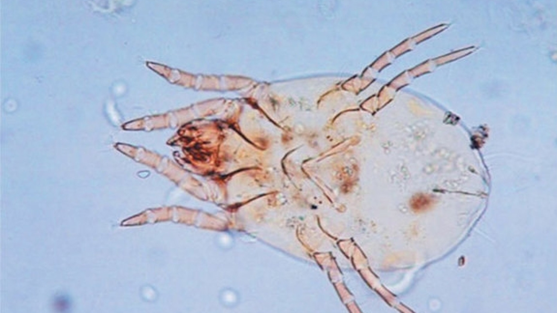 This photo shows a female mite of the species Dermatophagoides pteronyssinus. The New England Journal of Medicine ©2012