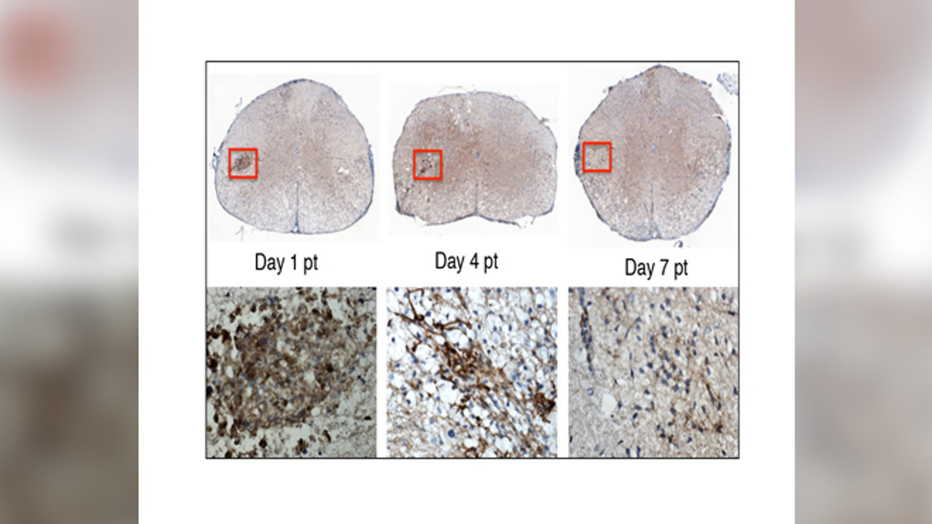 In this image, the top row shows the stem cells transplanted into the mouse spinal cord. The lower row shows a close-up of the stem cells (brown). By day 7 post-transplant, the stem cells are no longer detectable. Within this short period of time, the stem cells have sent chemical signals to the mouse's own cells, enabling them to repair the nerve damage caused by MS. (image: Lu Chen)