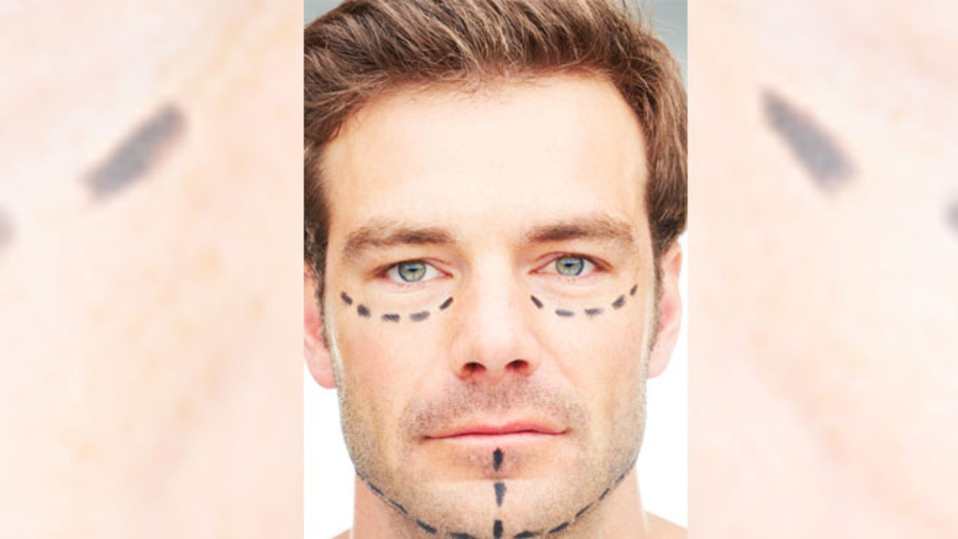 Building The Perfect Face New Trends In Cosmetic Surgery For Men