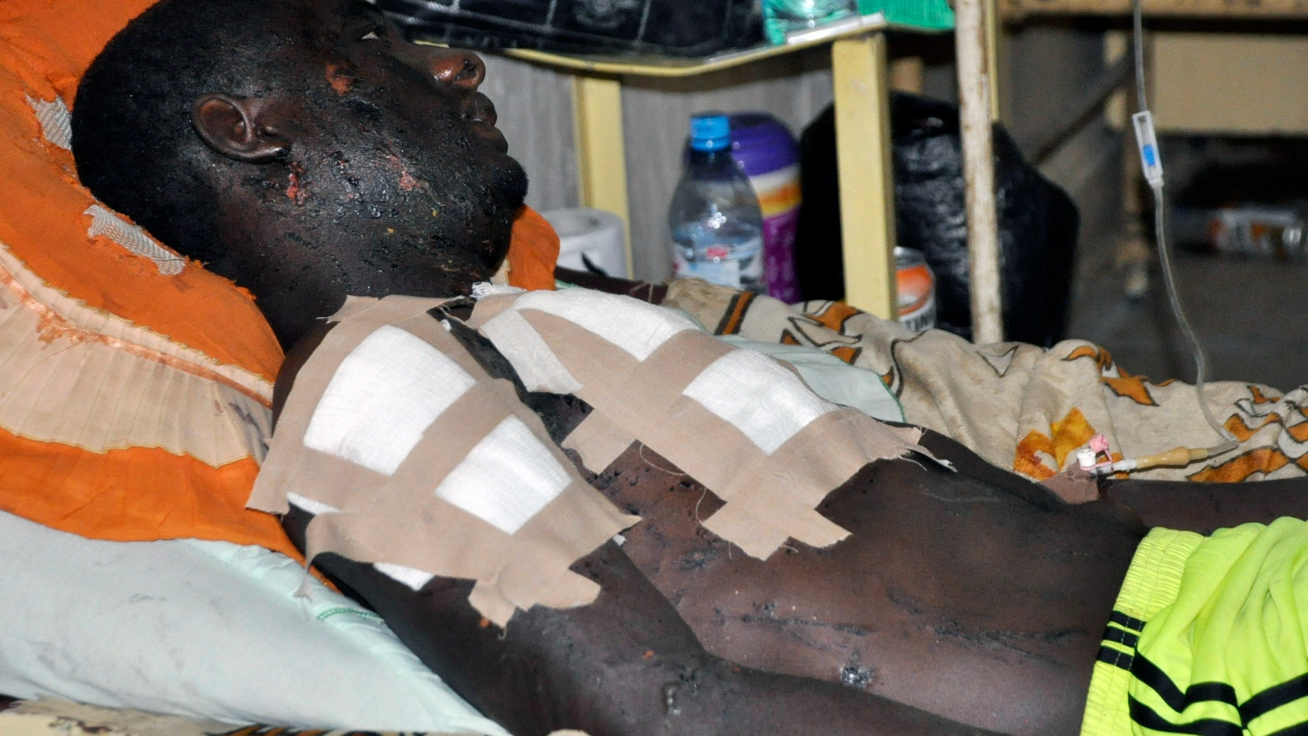 Nov. 30, 2014 - A victim of Friday's bomb explosion recuperates at the Murtala Muhammed specialist hospital, in Kano, Nigeria. More than 102 people were killed in the bomb explosions at the central mosque in the city Friday. Suspected Islamic extremists struck 2 state capitals in northeastern Nigeria Monday, with twin blasts at a crowded market and a police base.
