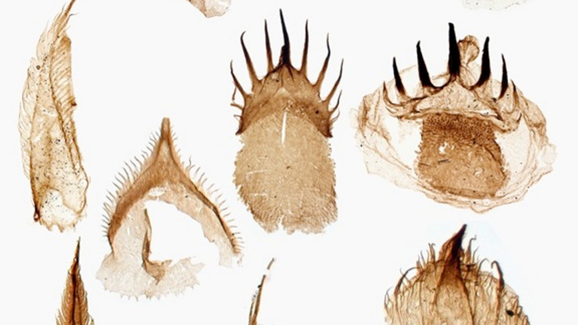 This is what the fossilized teeth of Ottoia prolifica look like under a microscope.