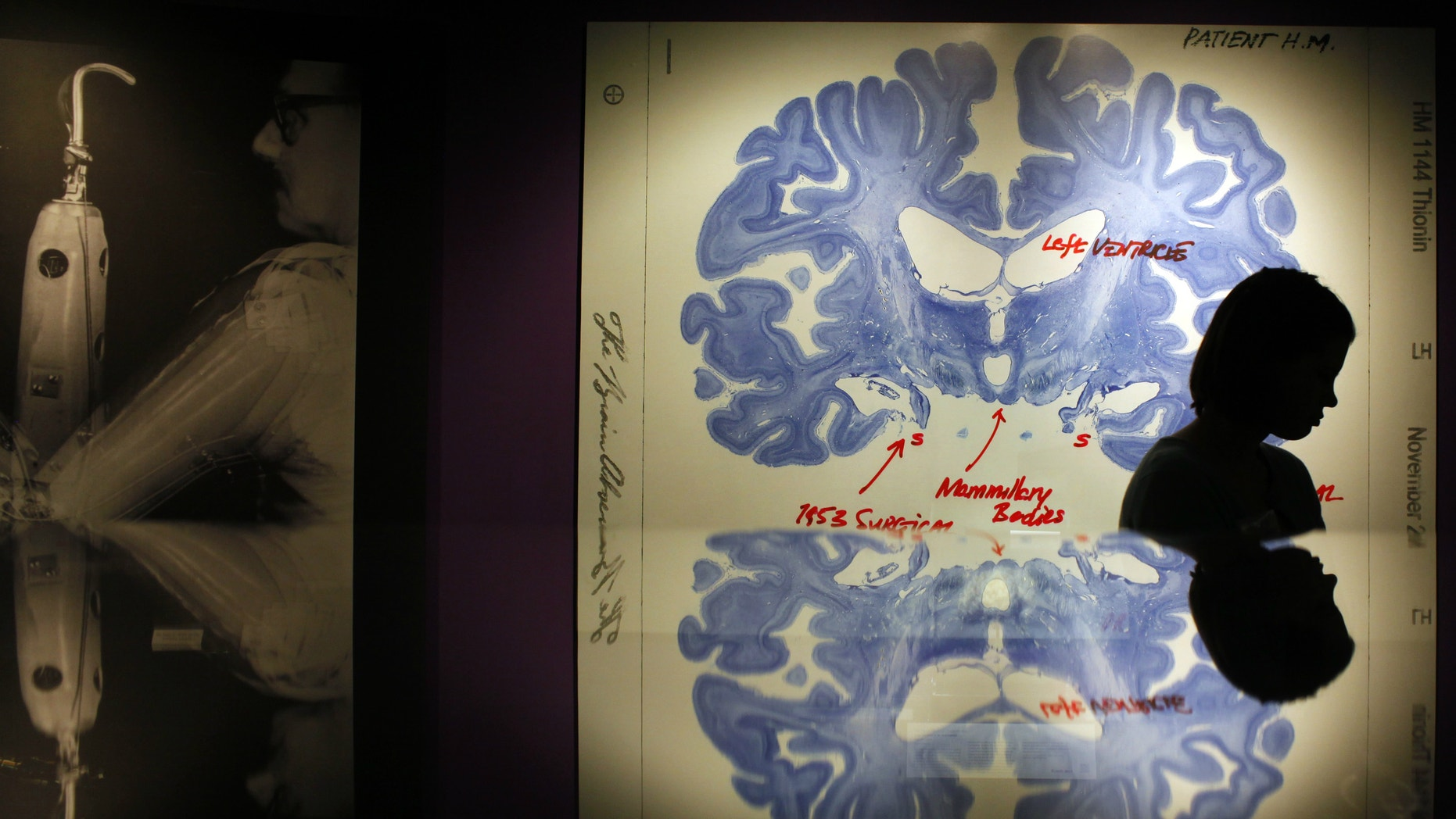 """A woman walks past a display of a brain slice of patient """"H.M."""" at the press preview for the MIT 150 Exhibition at the MIT Museum."""