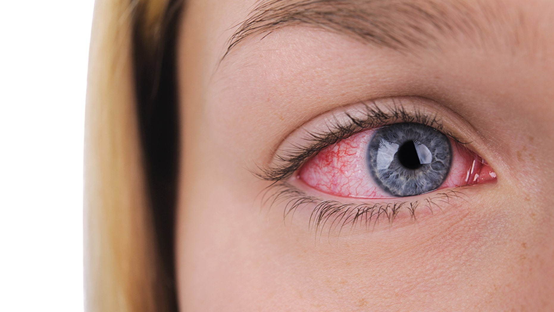 """A """"super strain"""" of pink eye has been reported in Houston, eye doctors in the state claim."""