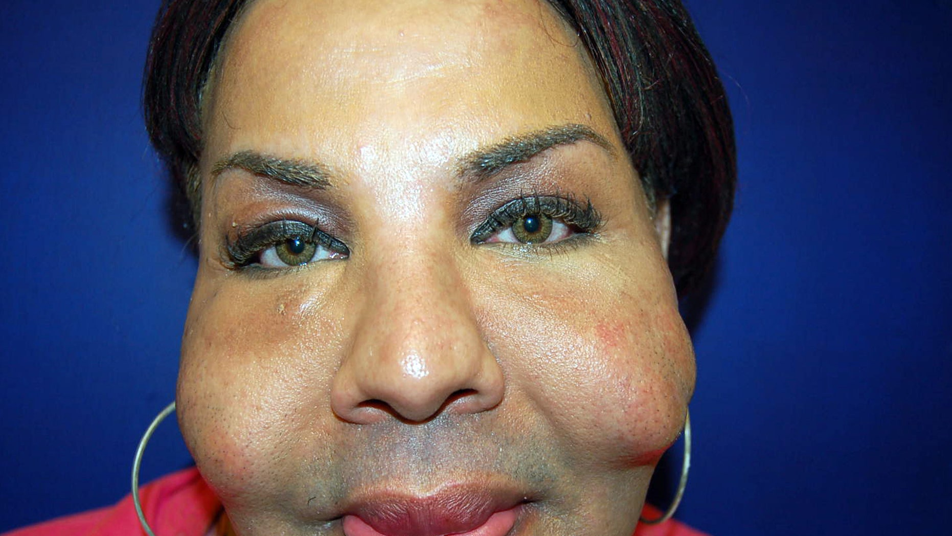 This photograph shows the damage illicit cosmetic procedures can cause recipients such as Rajindra Narinesinch, a patient whose face shows nodules from previous illicit procedures.