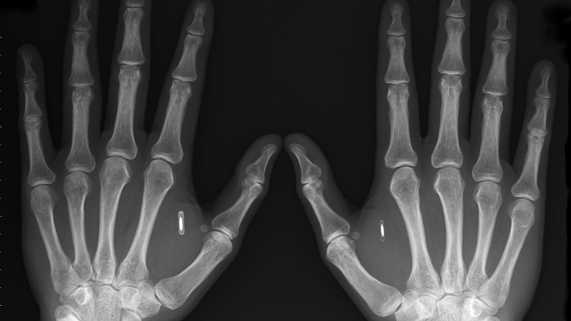 Tech enthusiasts and futurists think implantable radio chips, such as those embedded in Amal Graafstra's hands, could mean safety, security and convenience. But civil libertarians are concerned about privacy.