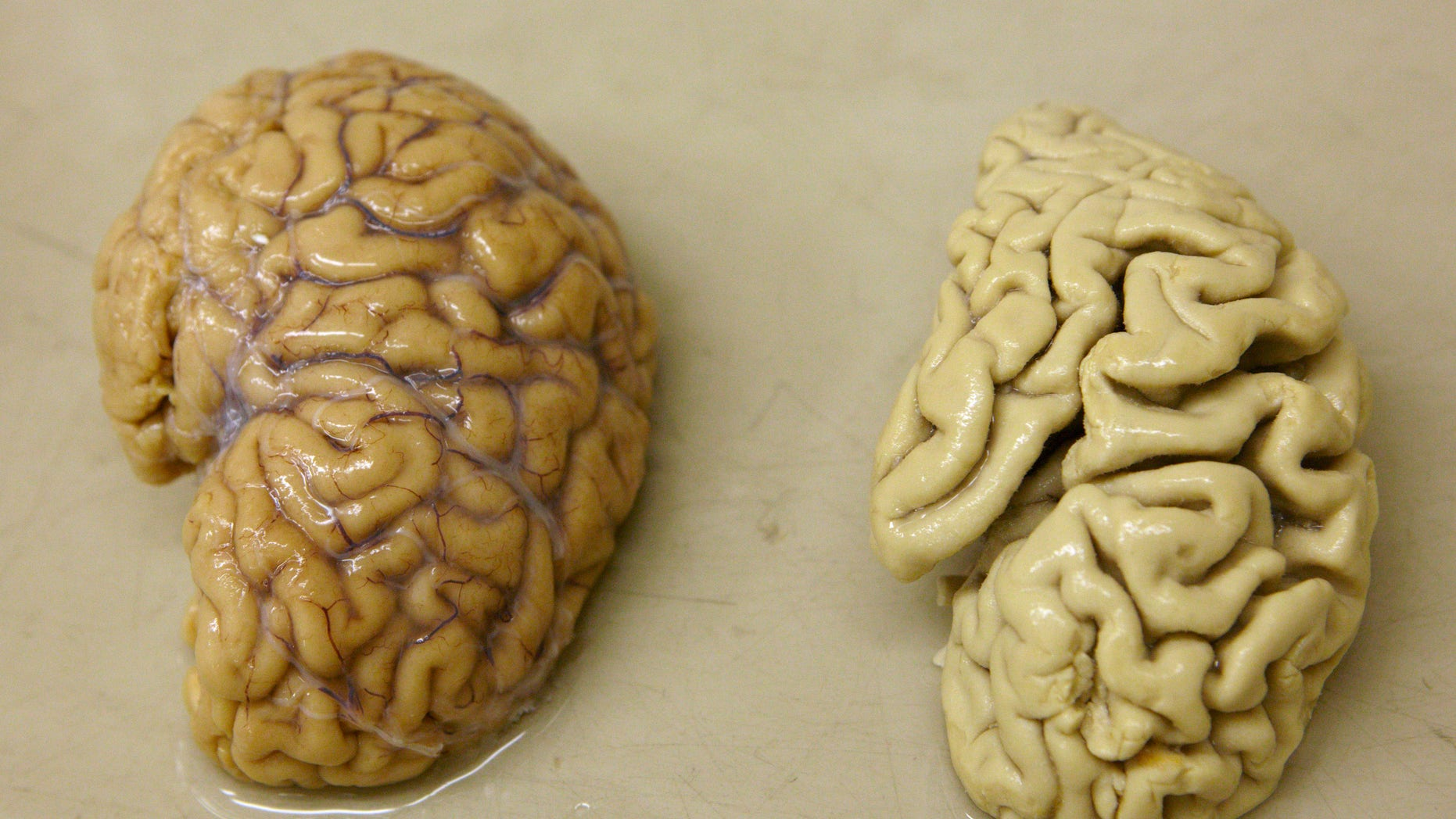 One hemisphere of a healthy brain (L) is pictured next to one hemisphere of a brain of a person suffering from Alzheimer disease, at the Belle Idee University Hospital near Geneva March 14, 2011. (REUTERS/Denis Balibouse)