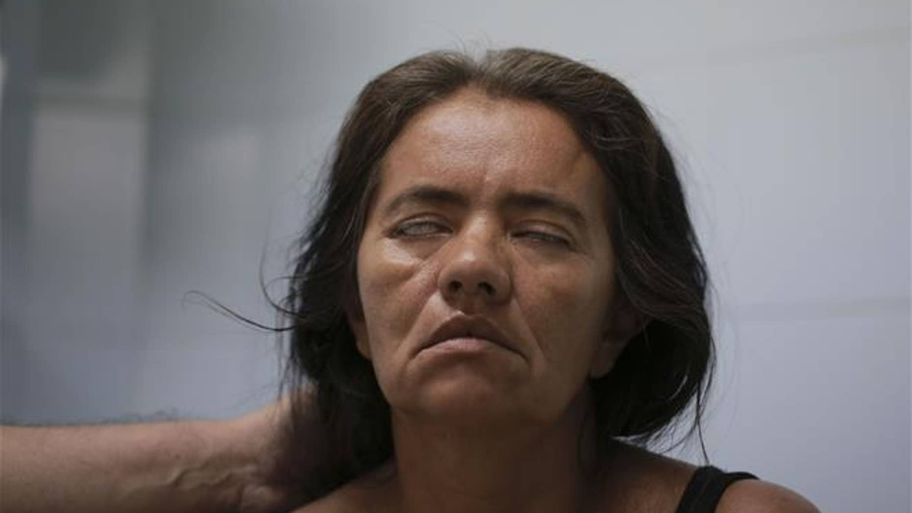 A patient fails to close her eyes as a neurologist tests her facial muscles at a hospital in Cucuta, Norte de Santander state, Colombia, on Feb. 11, 2016. The woman was diagnosed with Guillain-Barre syndrome.