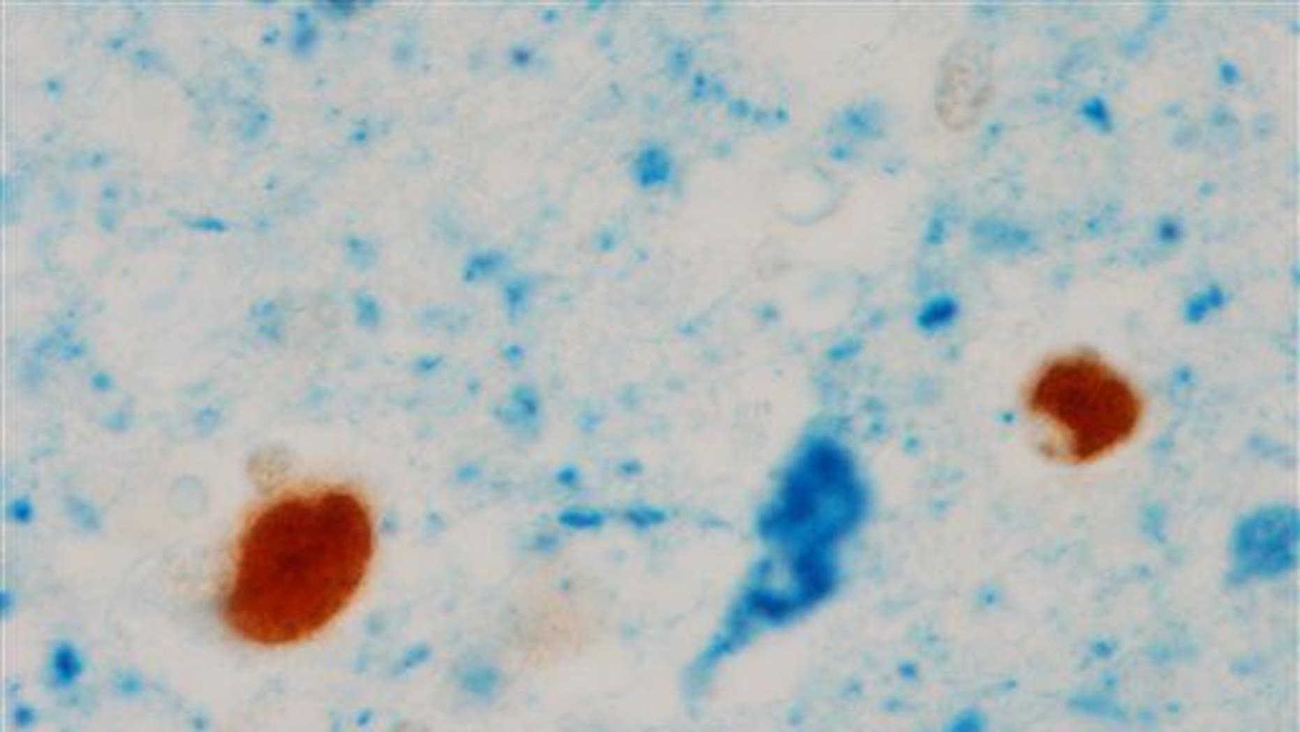 This image provided by the Mayo Clinic shows abnormal blobs in the brain of an Alzheimer's patient.
