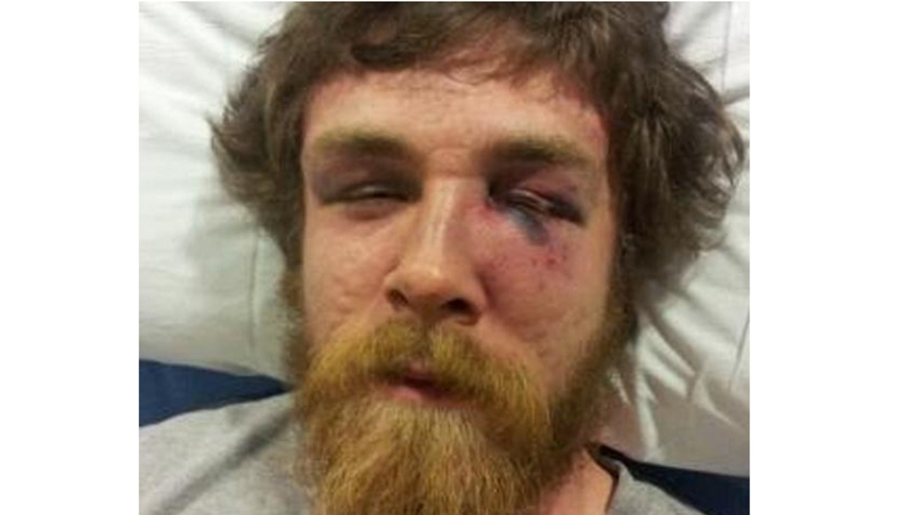 Sean Kedzie in his hospital bed shortly after the beating incident in Whitewater, Wisconsin.