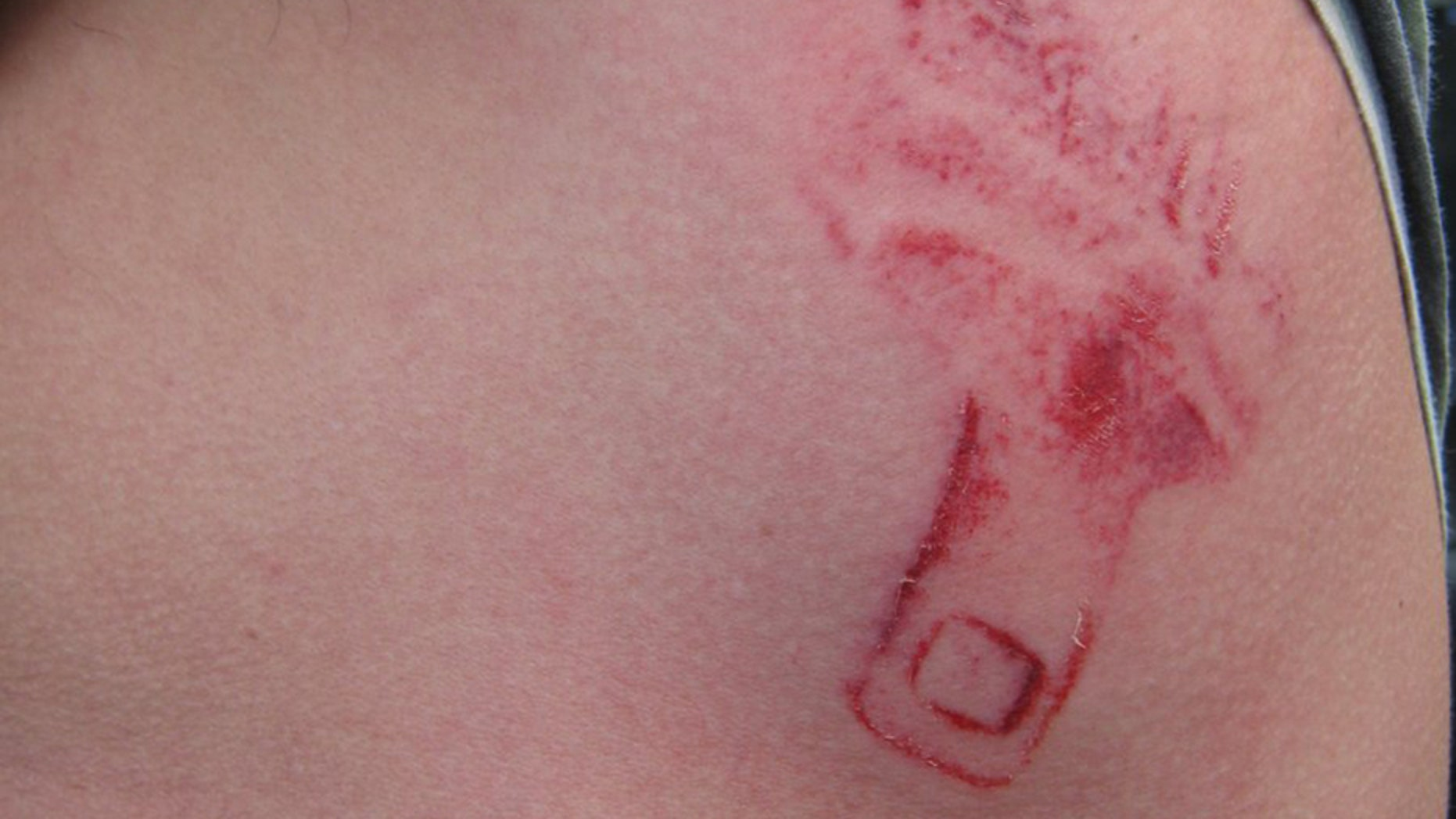 Washington state authorities shared a photo Wednesday of a man's unexpected car crash wound, taking the moment to stress the need for people to wear seatbelts.
