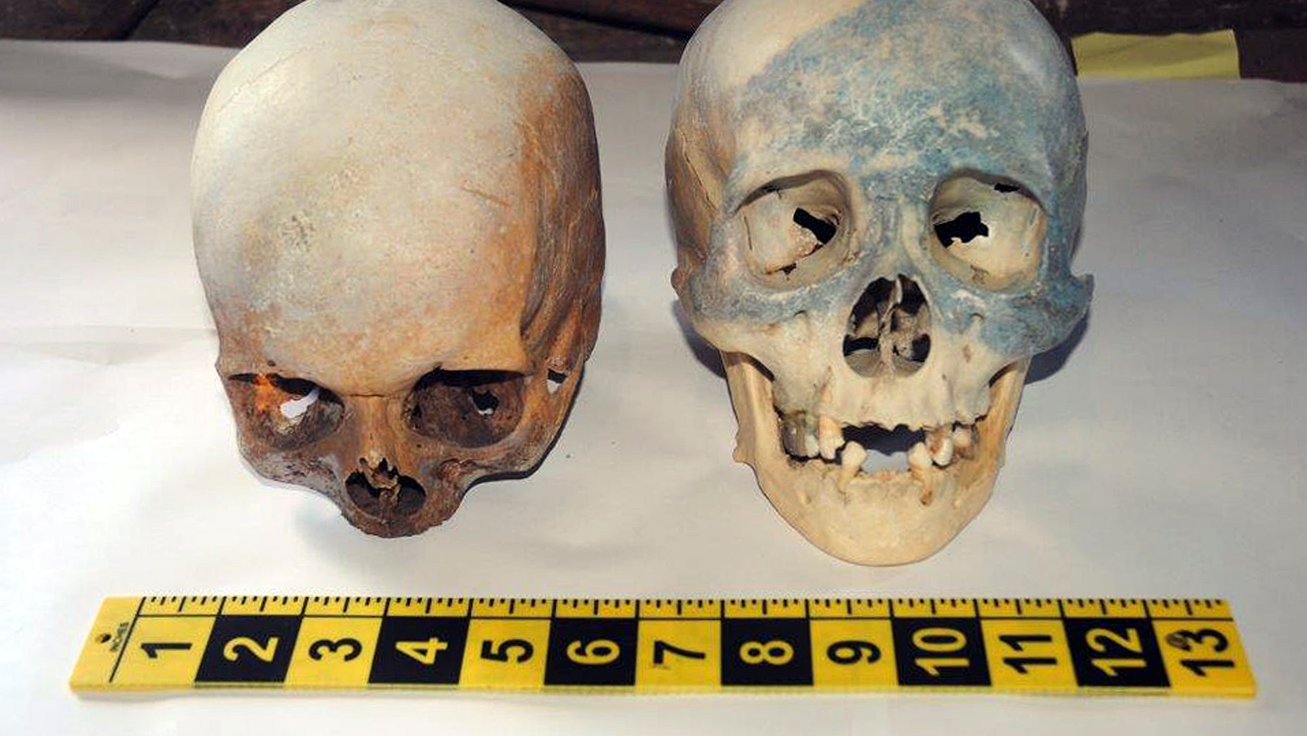 In this photo released by the Stamford, Conn., Police Department Friday, Oct. 31, 2014, two human skull are displayed, which were found at the Stamford Refuge Transfer Station. (AP/Stamford Police Department)