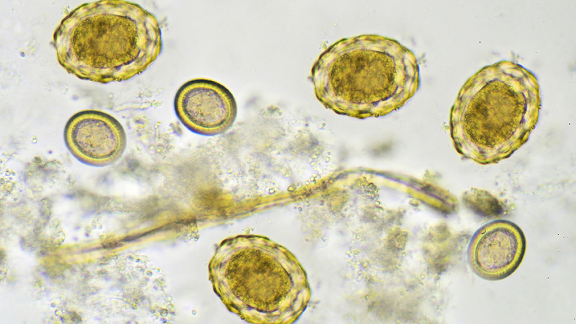Eggs of helminthes in stool, analyze by microscope