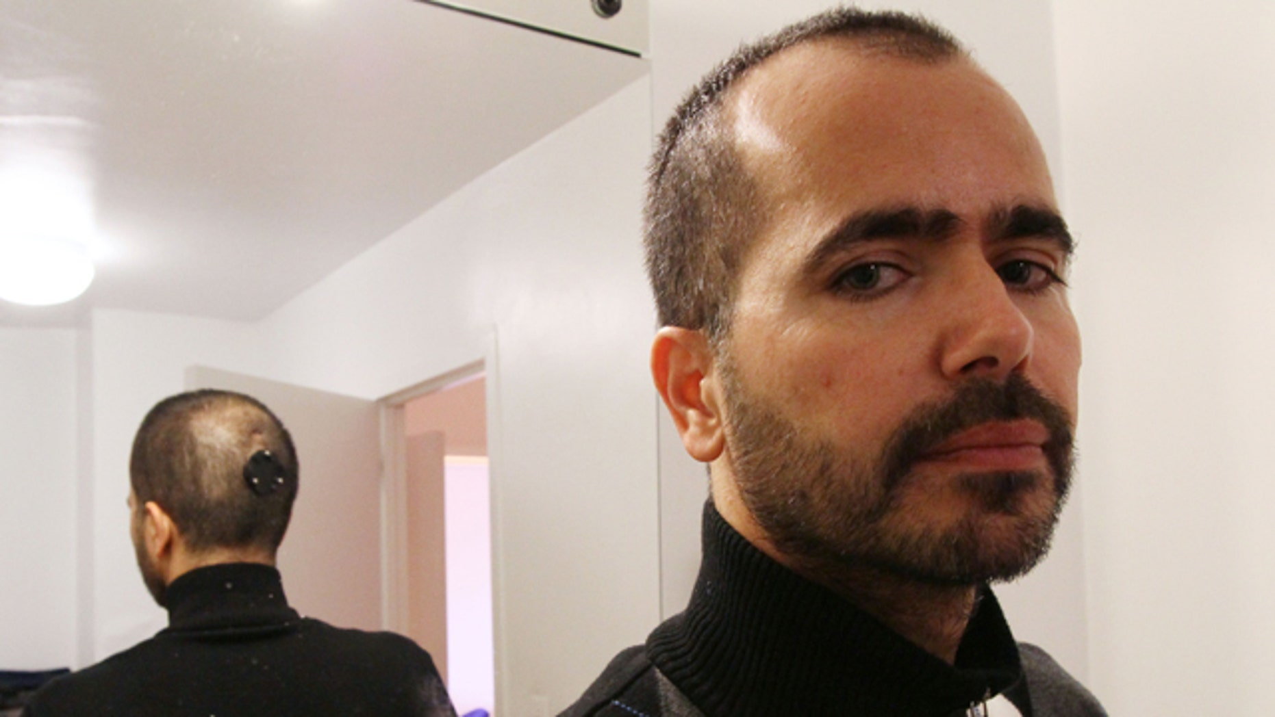 """With the back of his head reflected in a mirror, artist Wafaa Bilal poses for a photograph Thursday, Dec. 2, 2010 in New York. Bilal had a mount for a camera surgically implanted into the back of his head for his art project """"The 3rd I""""."""