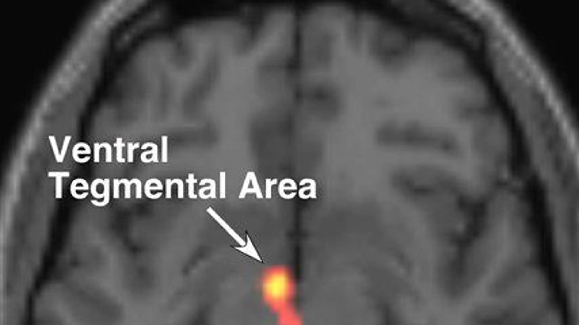 This functional magnetic resonance imaging of a brain, provided courtesy of the Albert Einstein College of Medicine, shows activity in the ventral tegmental area (VTA).