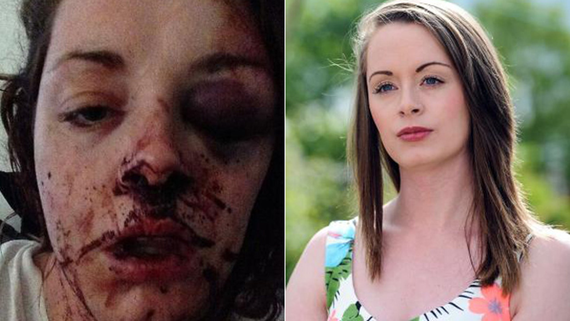 Left: This selfie shows the terrible injuries Colleen suffered. Right:  Colleen after recovering from the shocking ordeal.