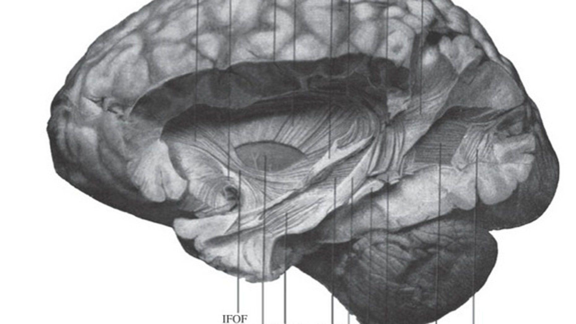 A drawing of a postmortem brain that includes the vertical occipital fasciculus (bottom left) published by neuroscientist E.J. Curran in 1909.