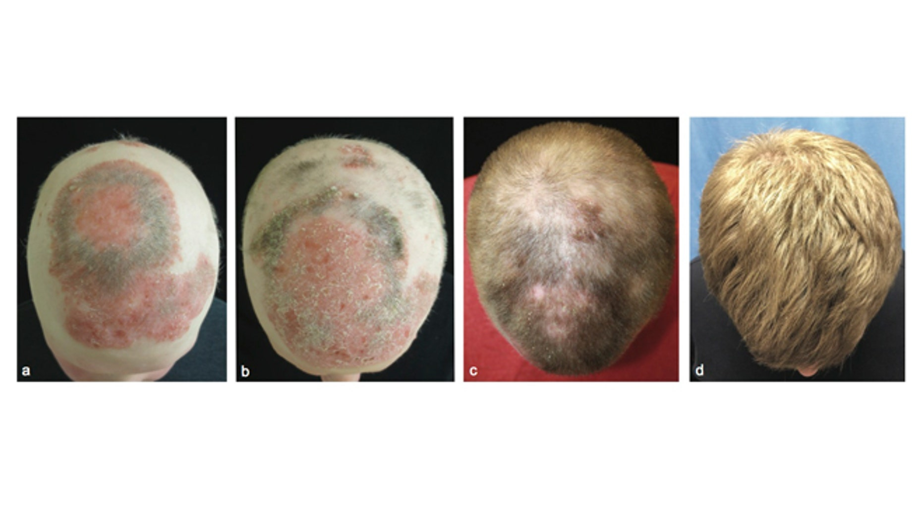 Images showing the alopecia patient during treatment with tofacitinib to regrow his hair. 1st panel- before treatment. 2nd panel- 2 months into treatment. 3rd panel- 5 months into treatment. 4th panel- 8 months into treatment.