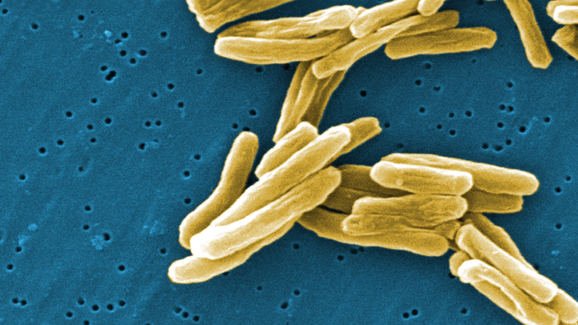 This scanning electron micrograph (SEM) depicts some of the ultrastructural details seen in the cell wall configuration of a number of Gram-positive Mycobacterium tuberculosis bacteria.