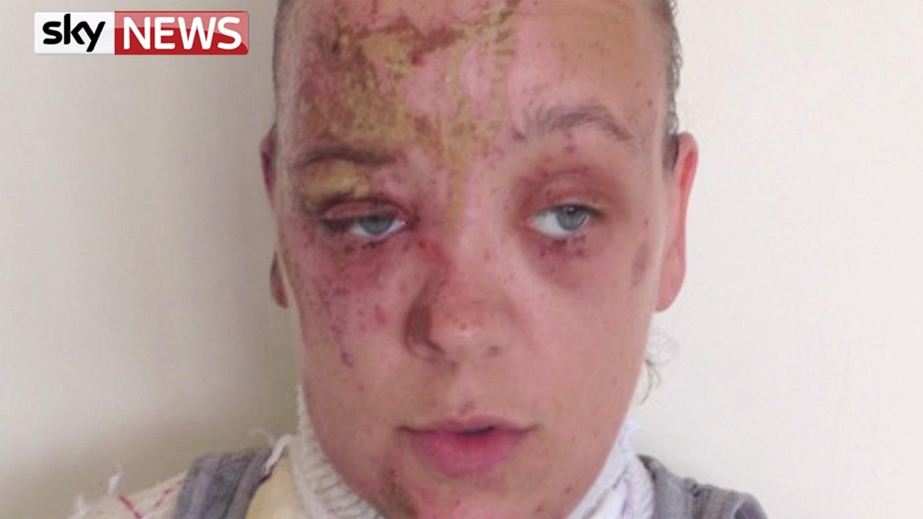 Tara Quigley said she still has nightmares of the acid attack.