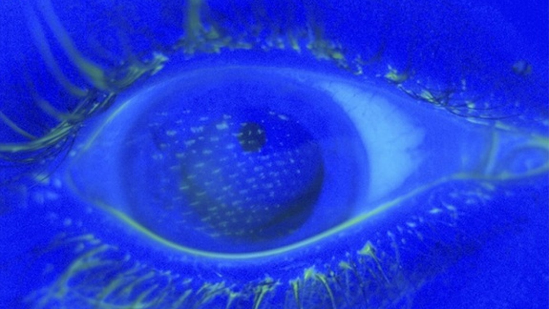 Under a blue light, fluorescein staining of the eye reveals an imprint of the nylon mesh pattern of the airbag cover on the corneal surface of the right eye.